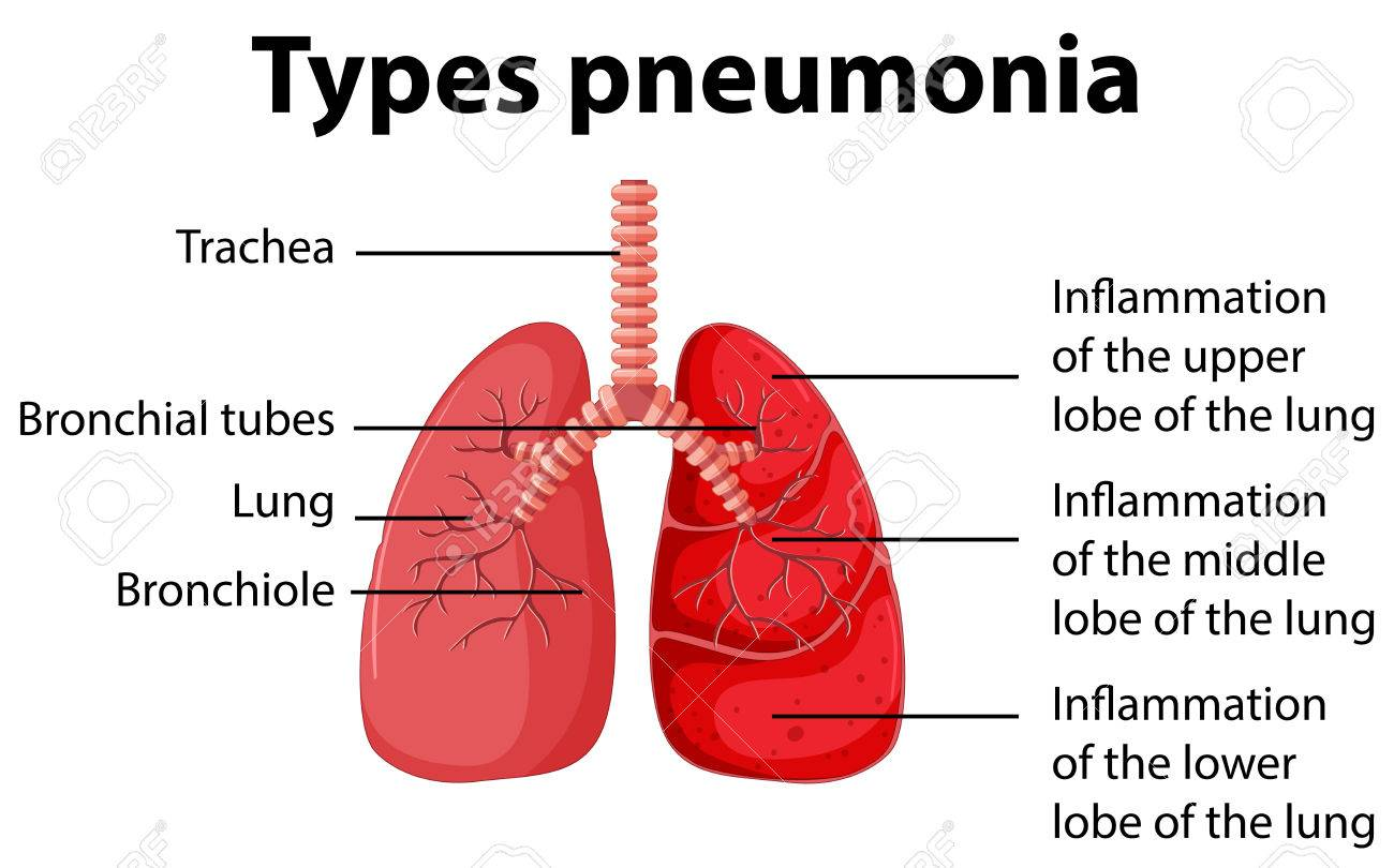 pneumonia patient diagram wiring diagrams