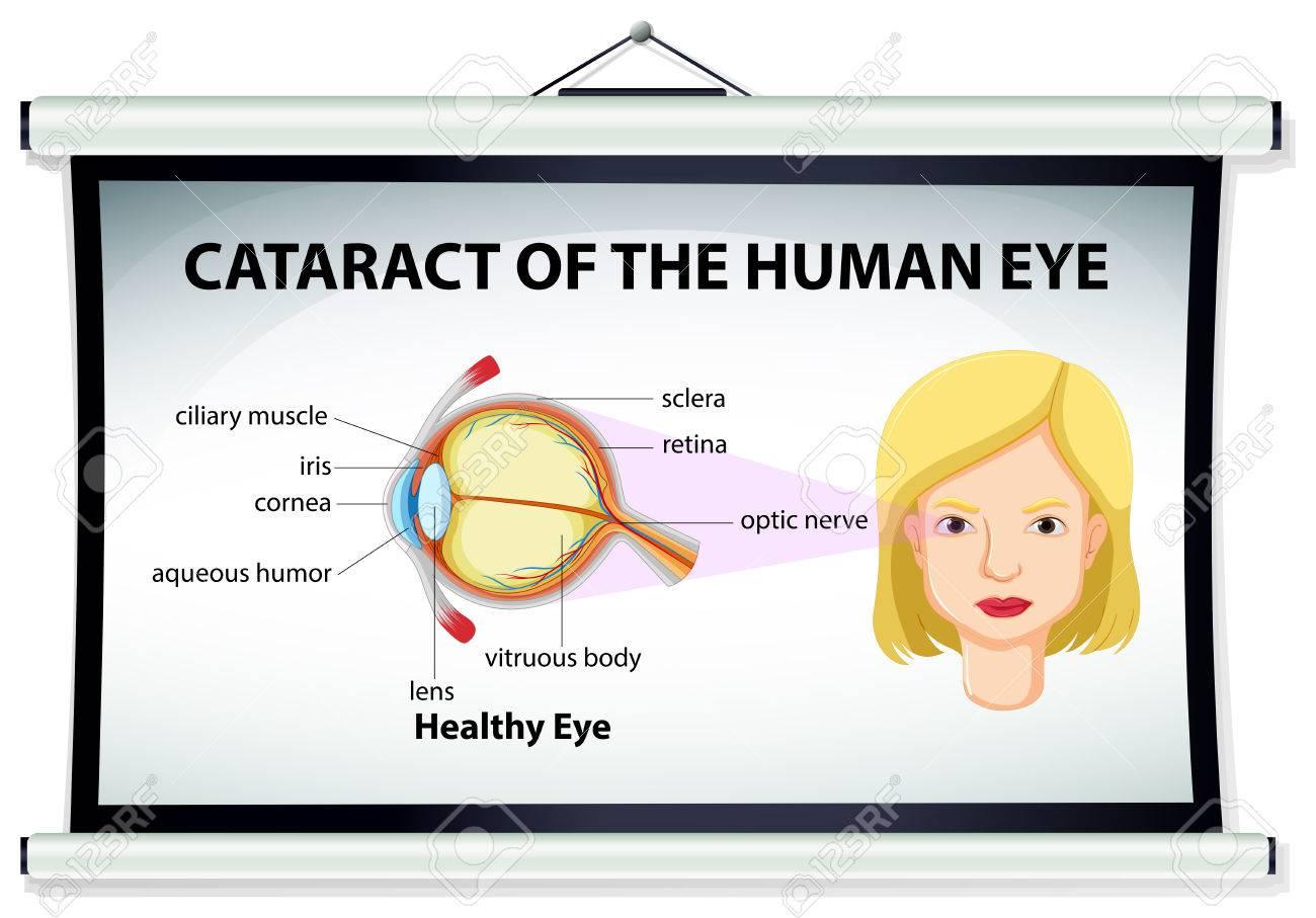 Diagrama De Cataratas En La Ilustración Ojo Humano Ilustraciones ...