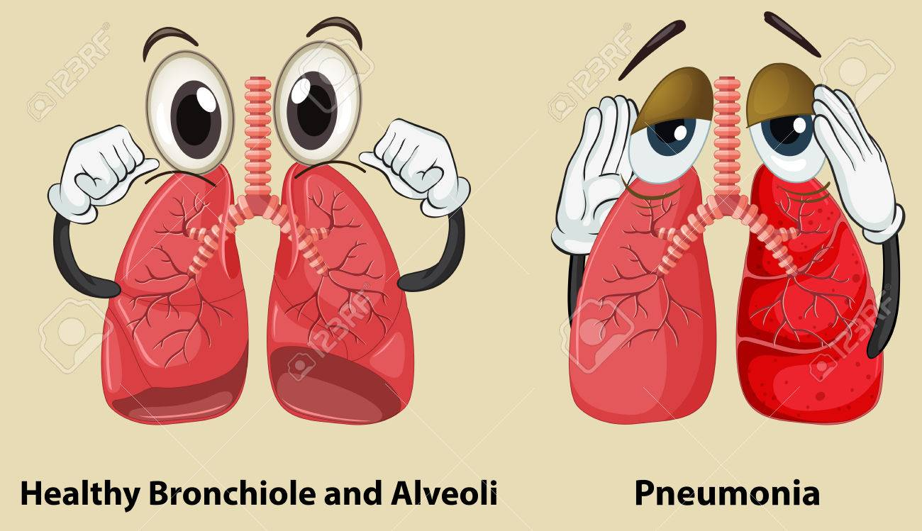 diagram showing healthy and pneumonia lungs illustration royalty