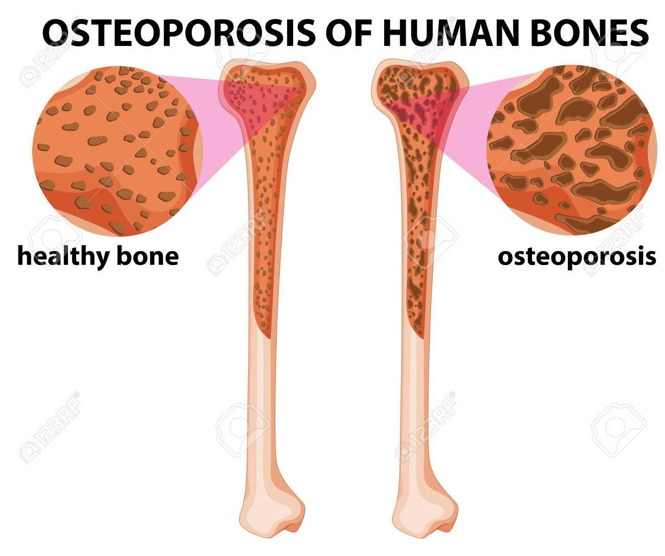Diagram showing osteoporosis of human bones illustration - 61462448