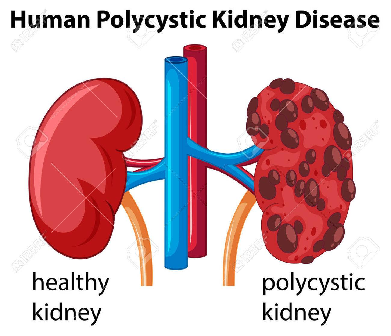 Diagram showing human polycystic kidney disease illustration royalty diagram showing human polycystic kidney disease illustration stock vector 69835700 ccuart Choice Image