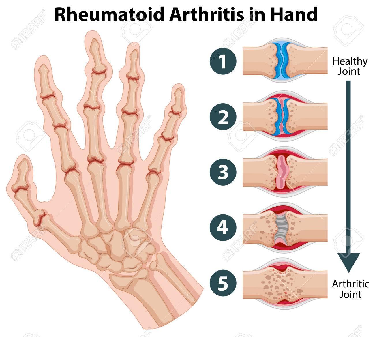 Diagrama Que Muestra La Artritis Reumatoide En La Ilustración De La ...