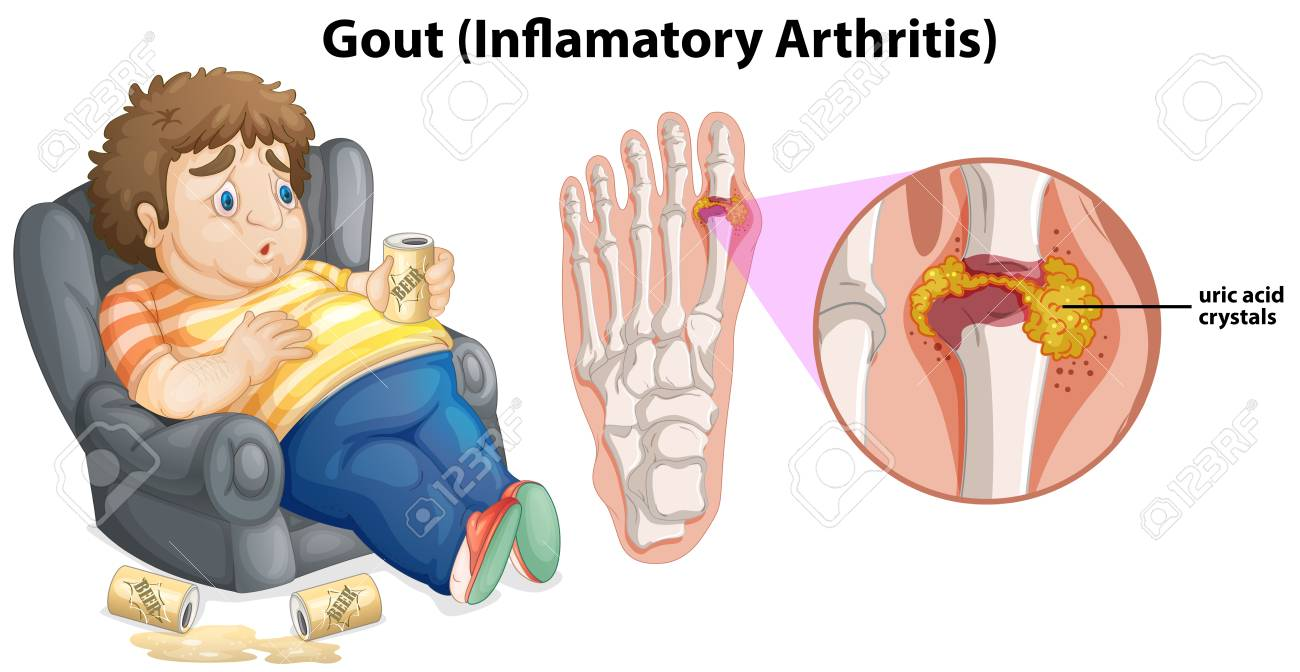A Fat Man Gout on Foot illustration - 114980752