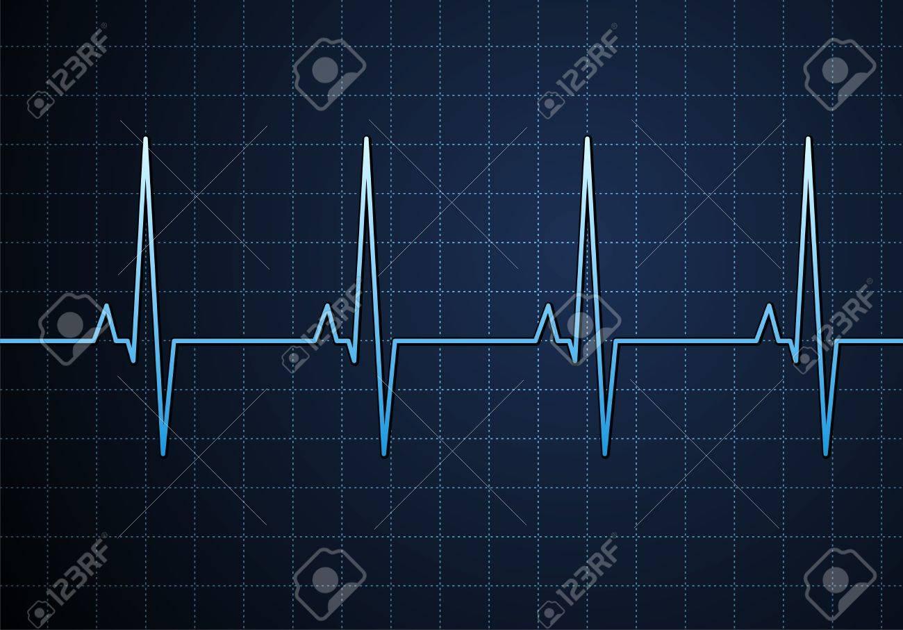 Lifeline in an electrocardiogram. Vector Stock Vector - 2147926