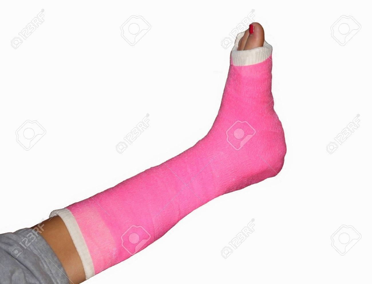 Broken leg with pink bandage and painted toenail Stock Photo - 13373702