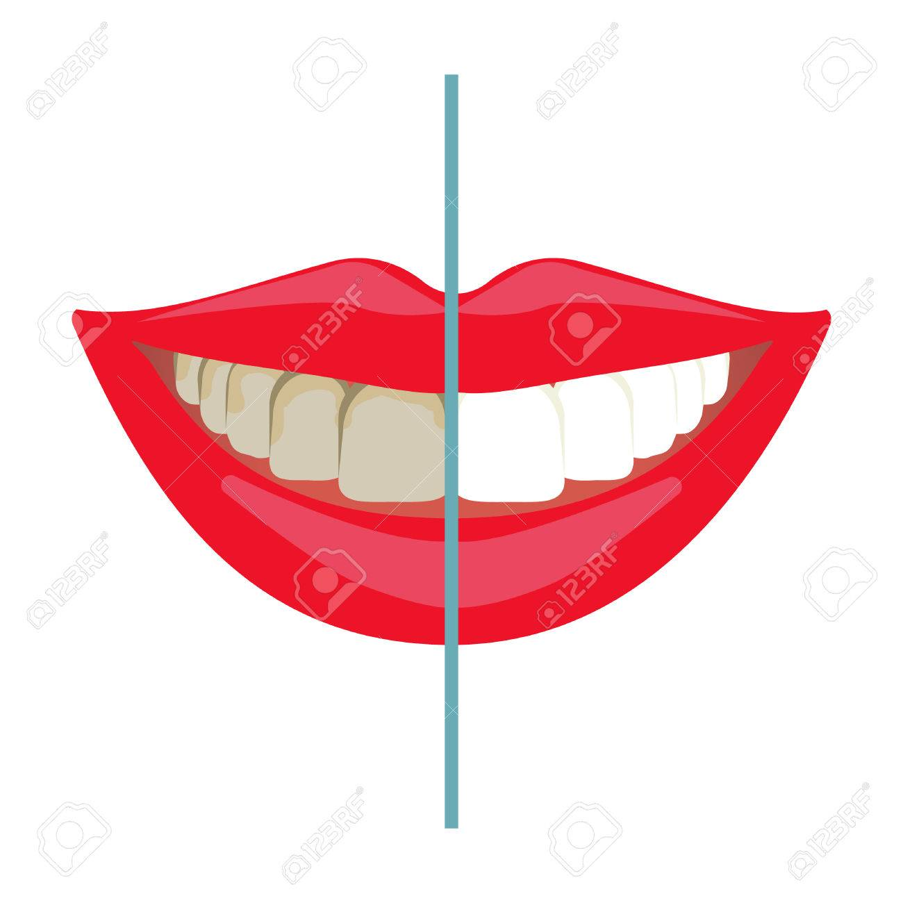 Whitening treatment as is indicated by comparison to the whitening - Teeth Whitening Before And After Results Dental Bleaching Teeth Smile Tooth Treatment Comparison