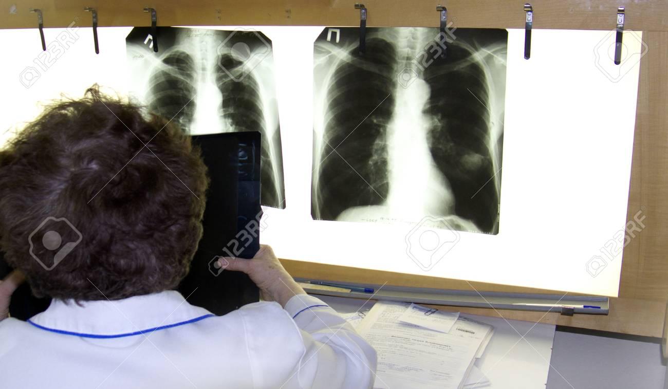 surgeon examines an xray Stock Photo - 2596253