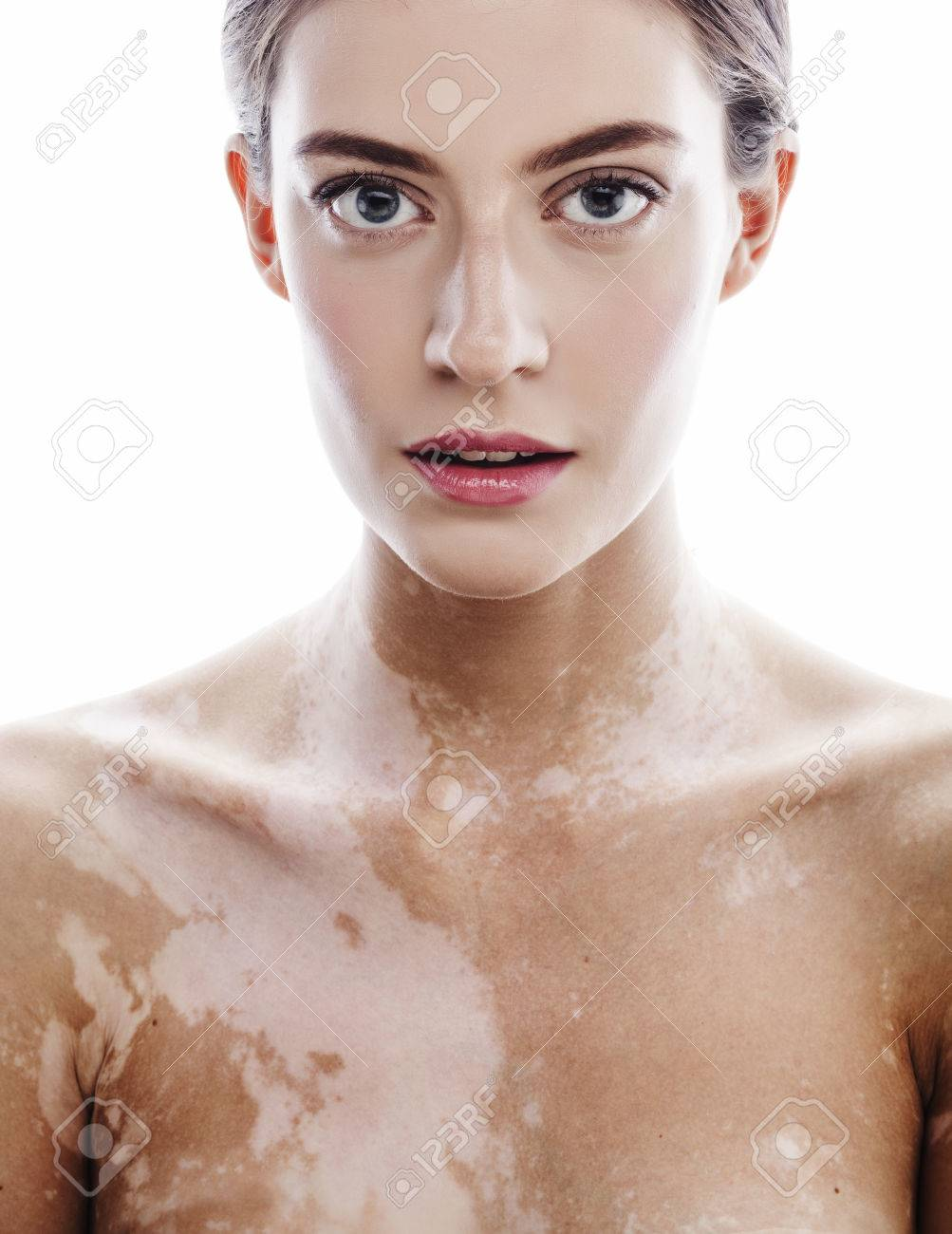 Beautiful Young Brunette Woman With Vitiligo Disease Close Up Stock Photo Picture And Royalty Free Image Image 58303666