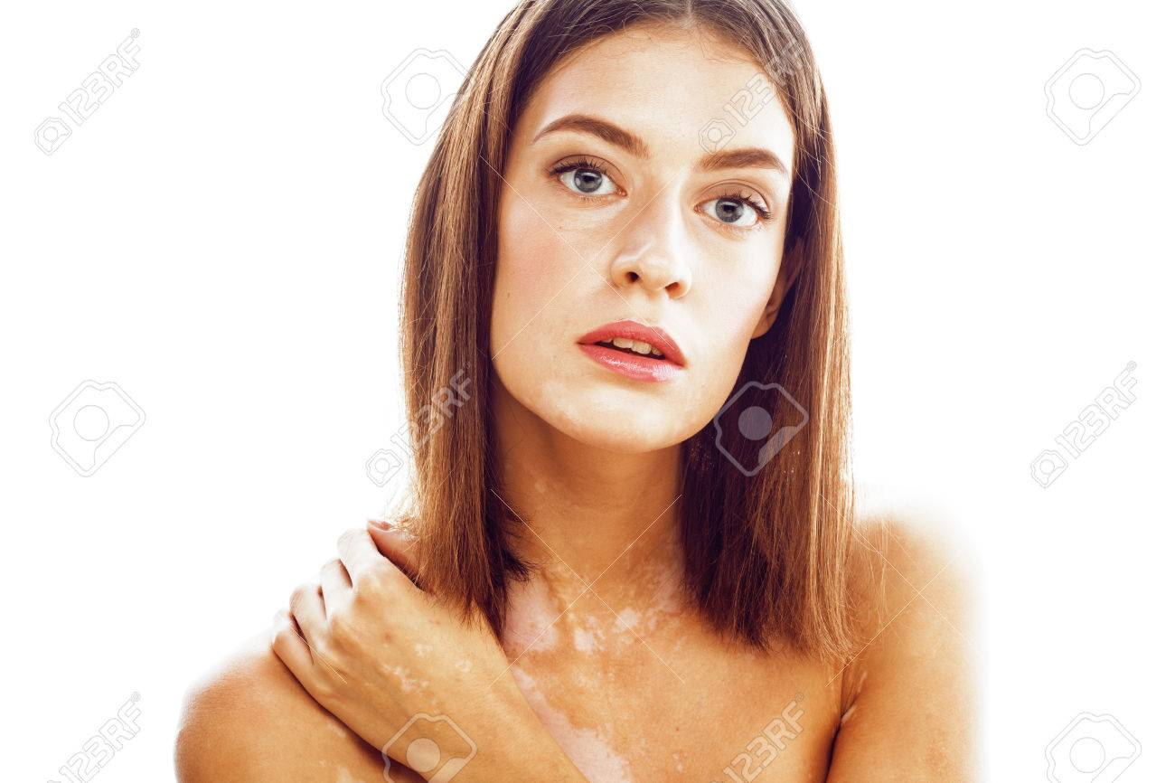Beautiful Young Brunette Woman With Vitiligo Disease Close Up Stock Photo Picture And Royalty Free Image Image 66281339
