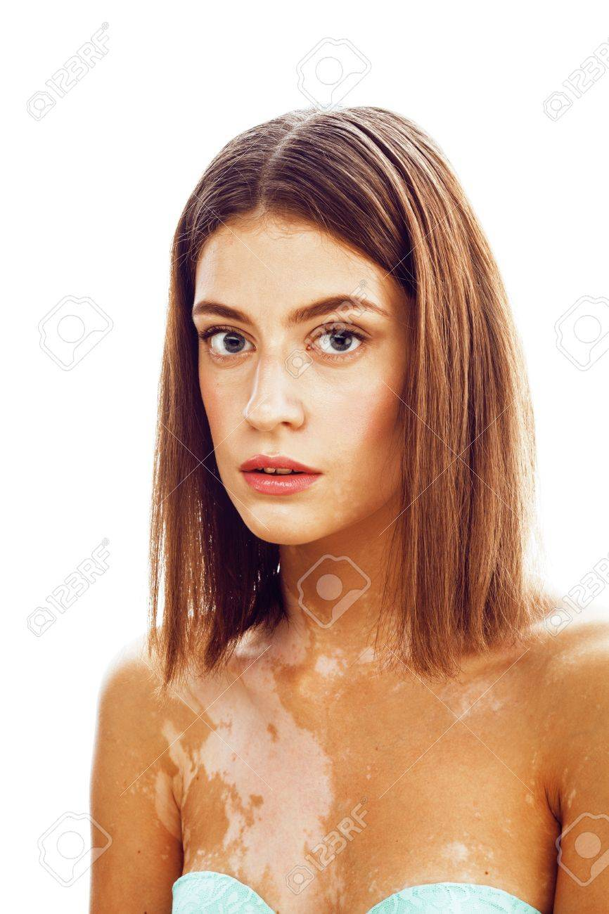 Beautiful Young Brunette Woman With Vitiligo Disease Close Up Stock Photo Picture And Royalty Free Image Image 69065962