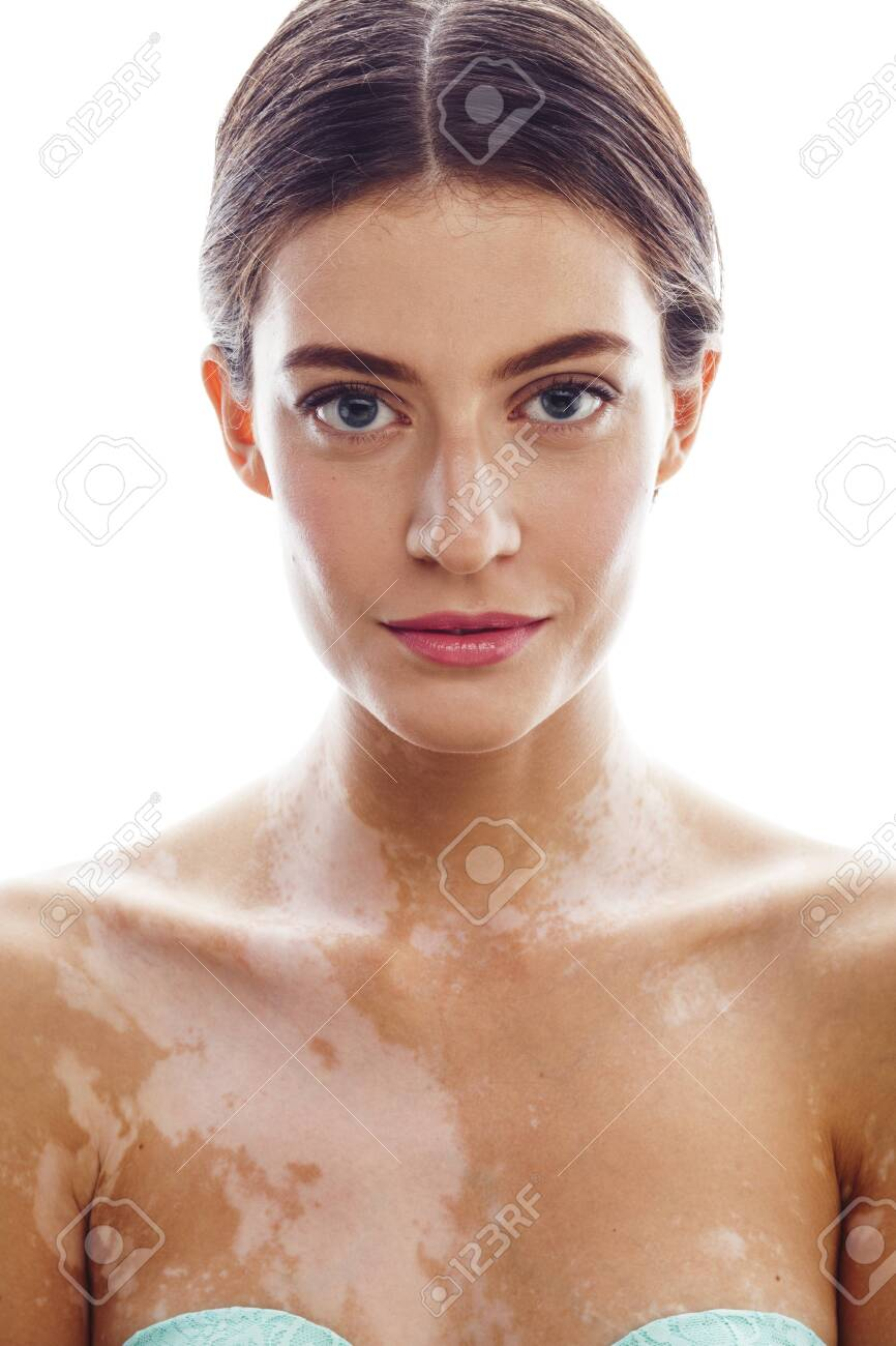 Beautiful Young Brunette Woman With Vitiligo Disease Close Up Stock Photo Picture And Royalty Free Image Image 140491417