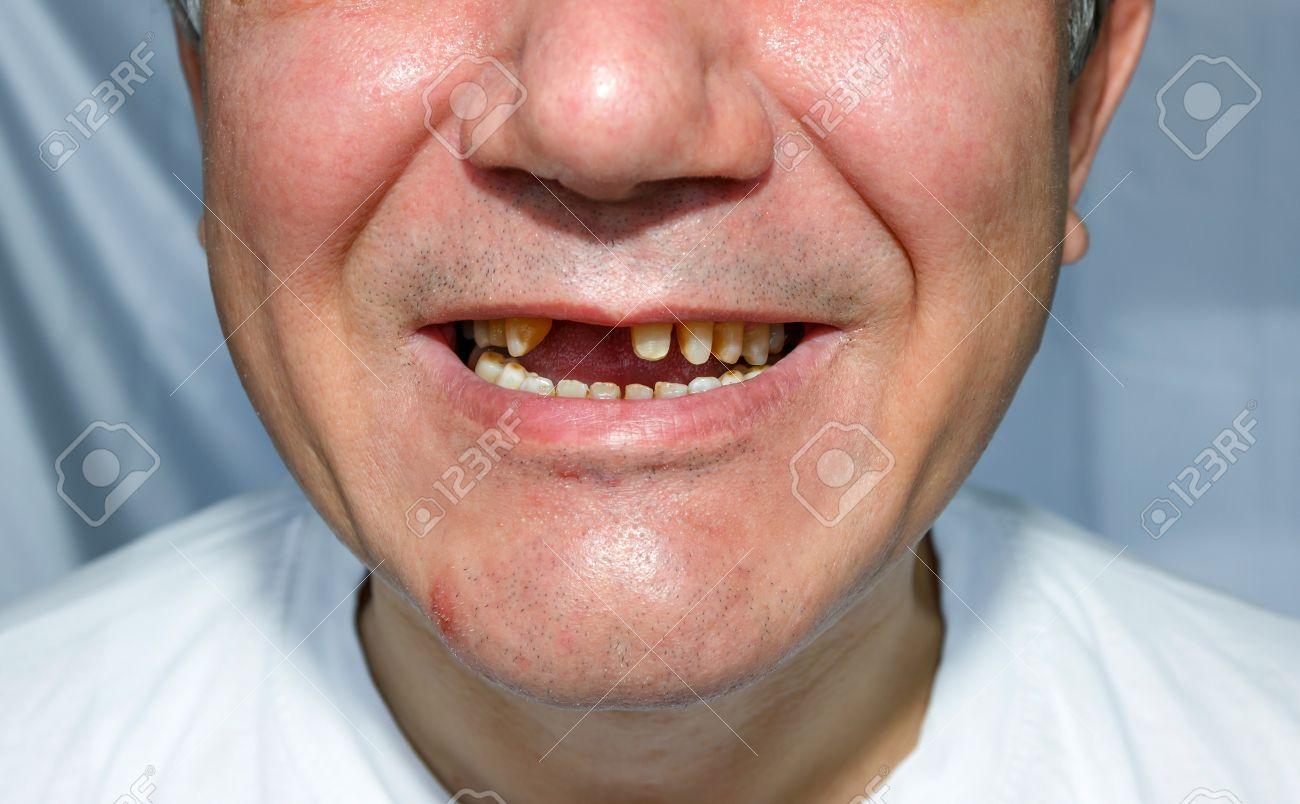 Ohne zähne mann Bild alte