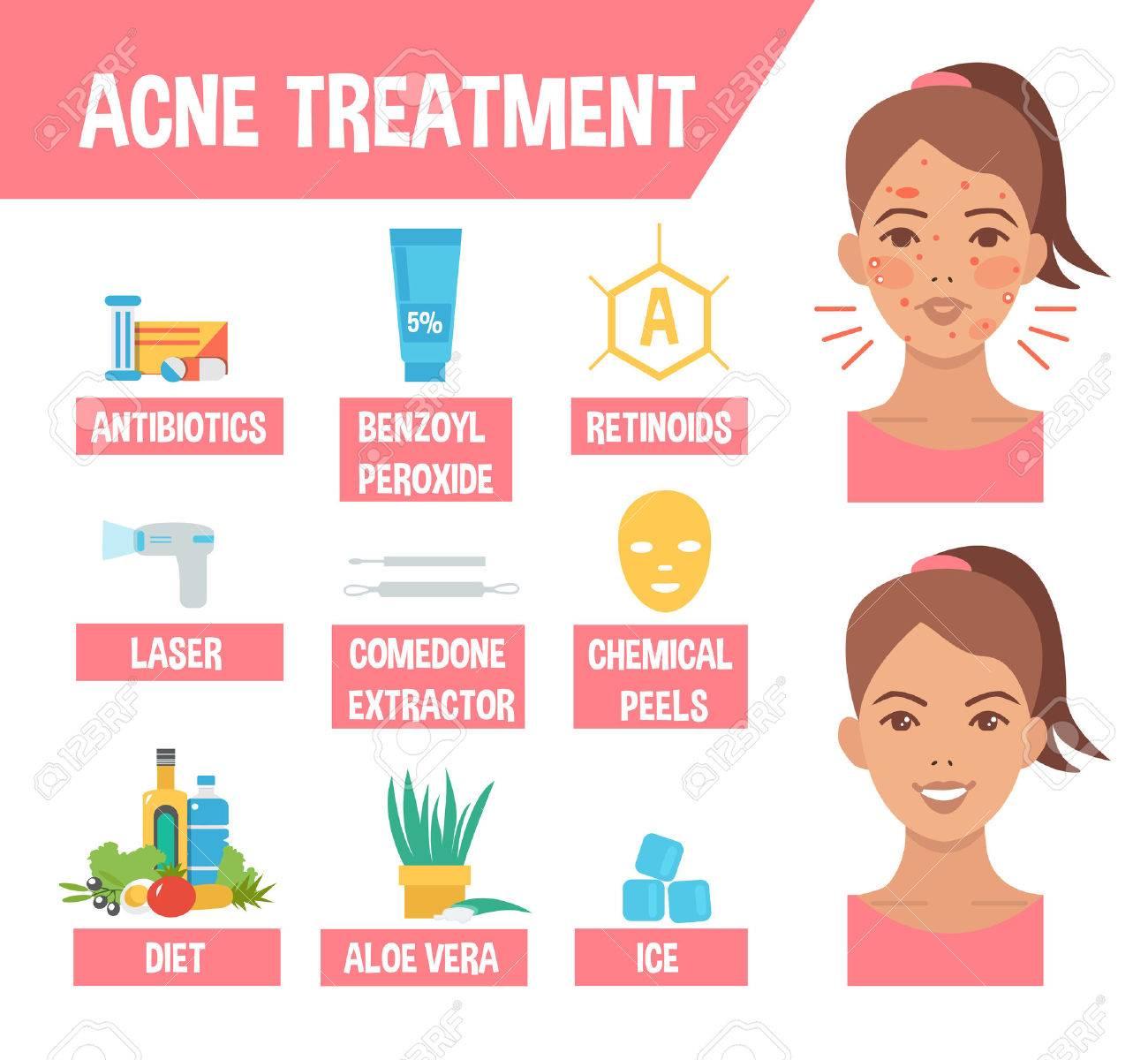 Acne Treatment Procedures Acne Infographic Elements Vector