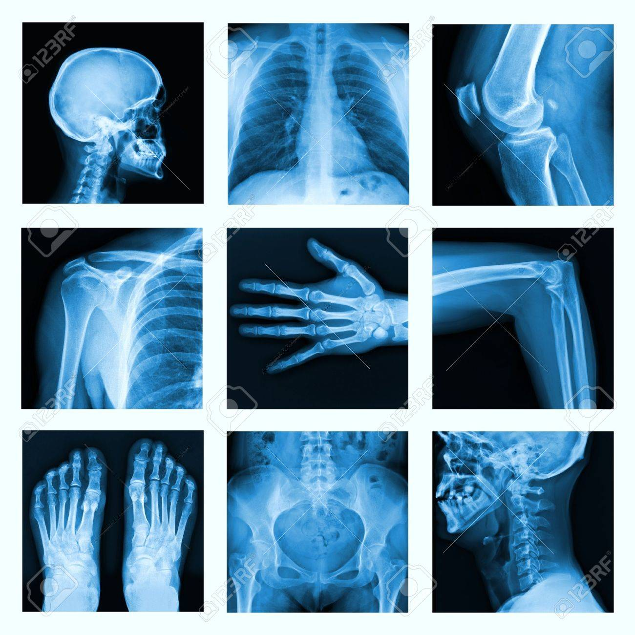 Collage of many X-rays in very good quality - 25078853