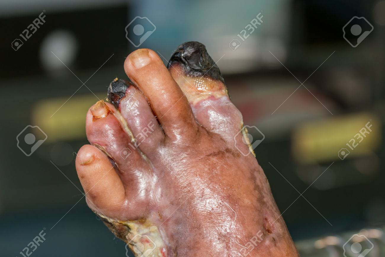 wound of diabetic foot - 44497668