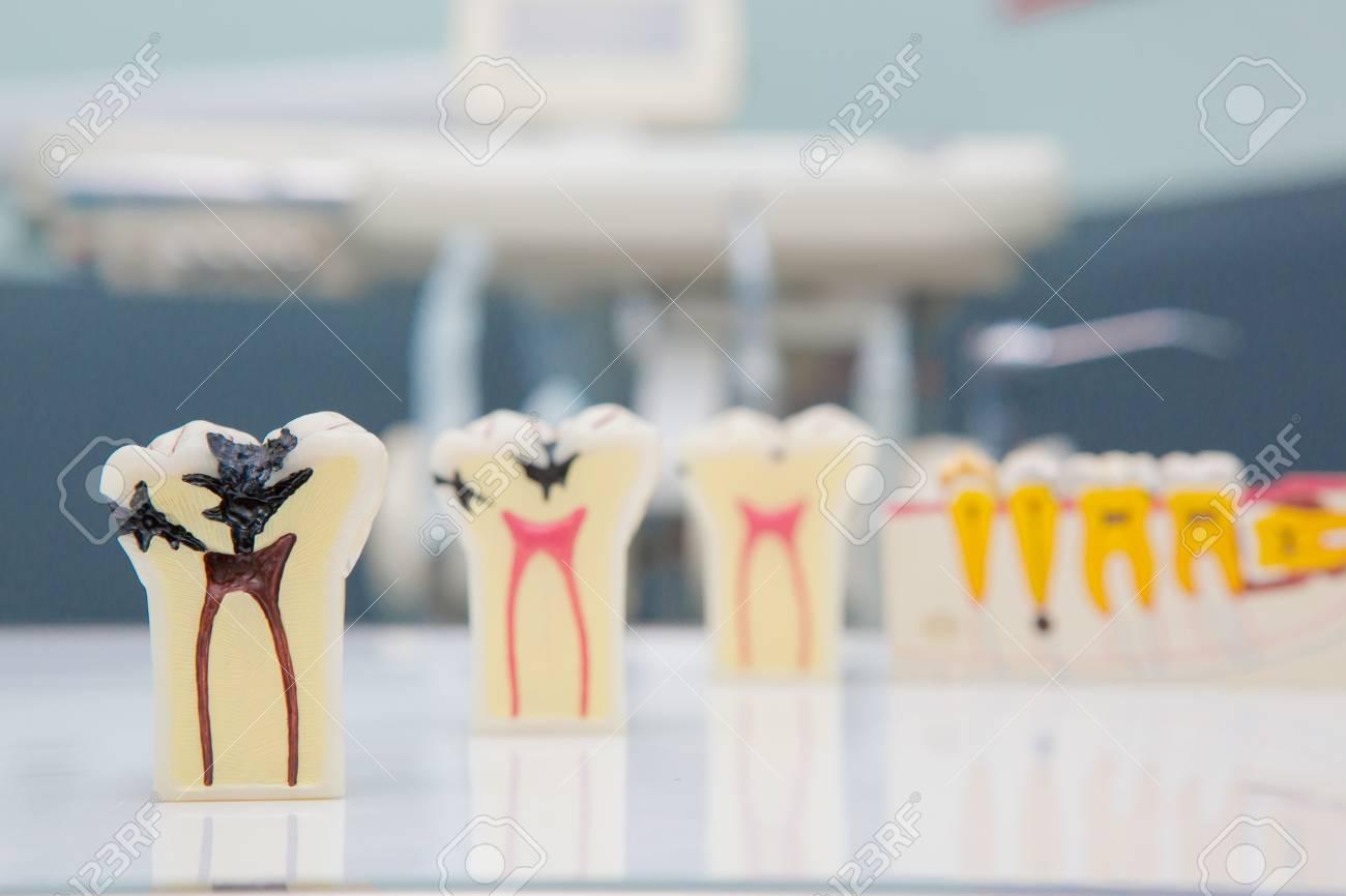 Dental Teeth Model and dental tool - 63754006