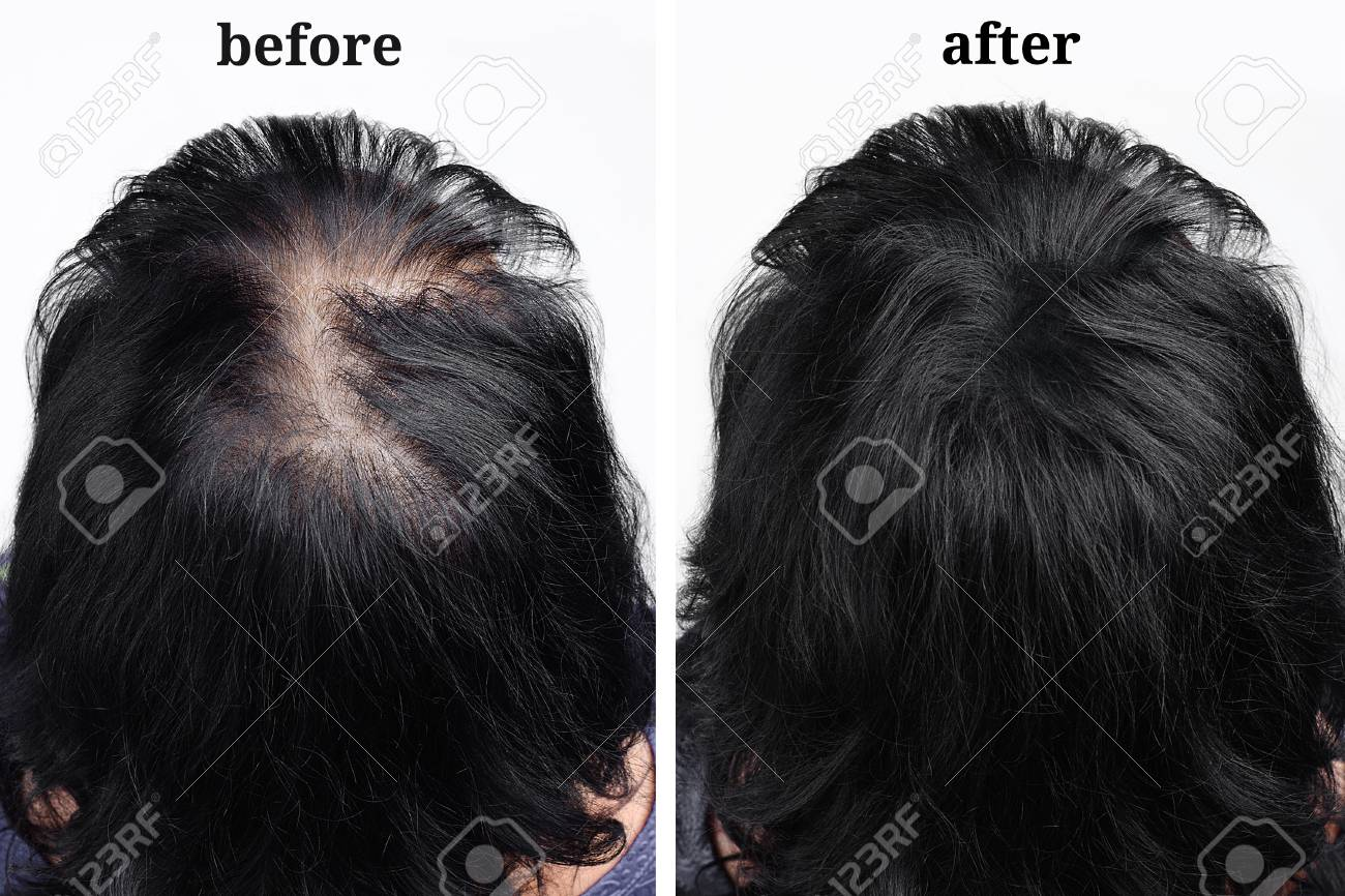 women's hair after using cosmetic powder for hair thickening. Before and after - 110247489