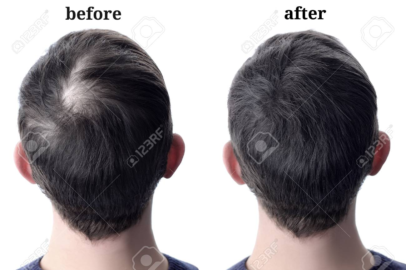 Men'shair after using cosmetic powder for hair thickening. Before and after - 110247501