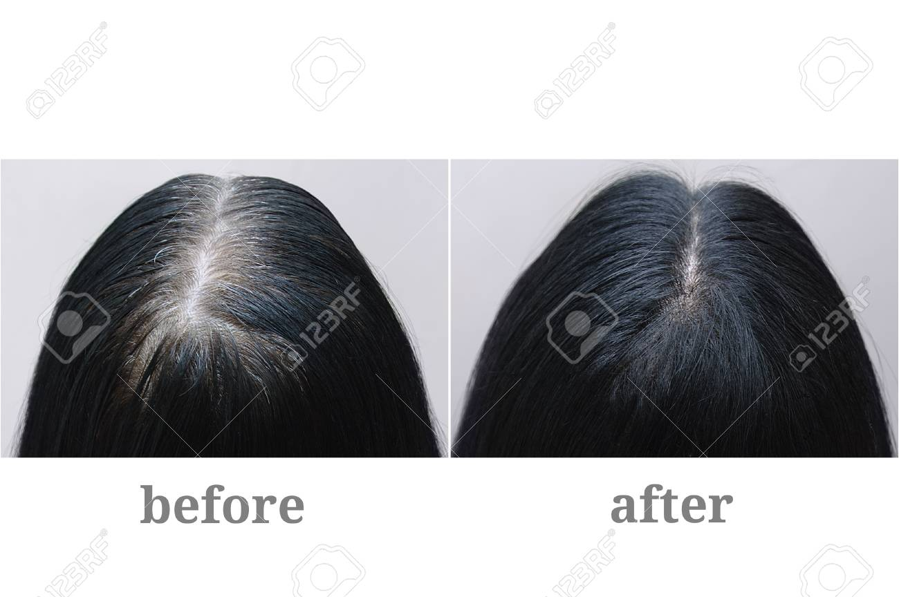 Head of a girl with black gray hair. Hair coloring.Top of the head. Before and after. - 126957741