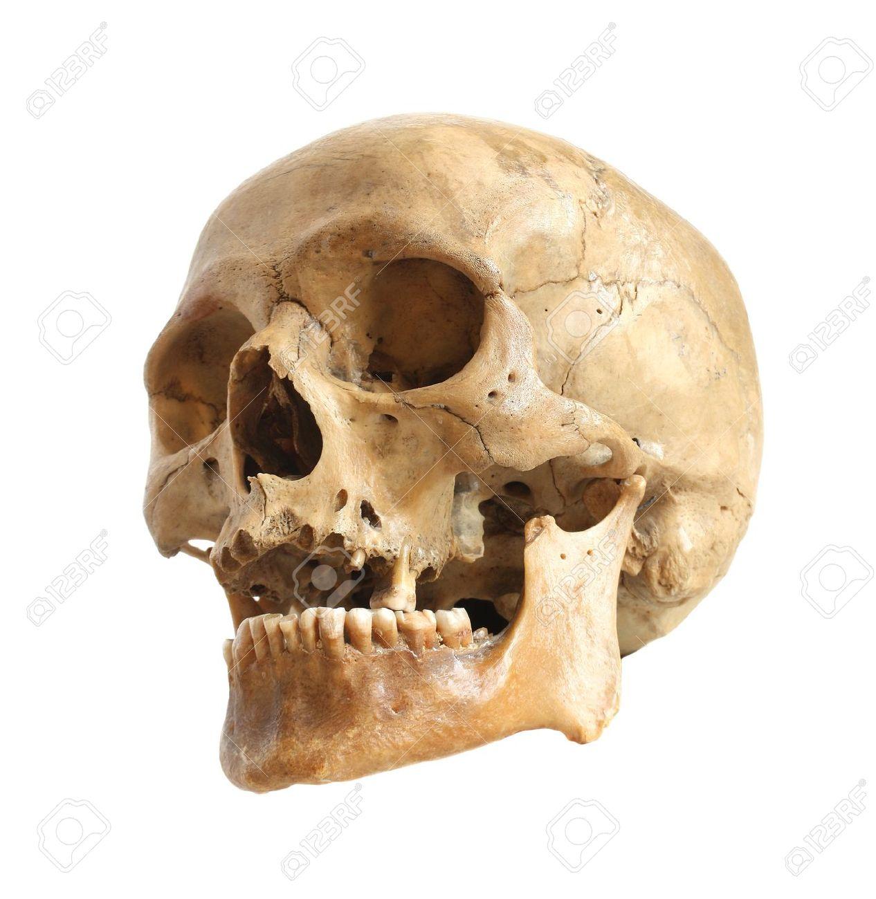 Фото настоящего черепа человека скуловая кость 6