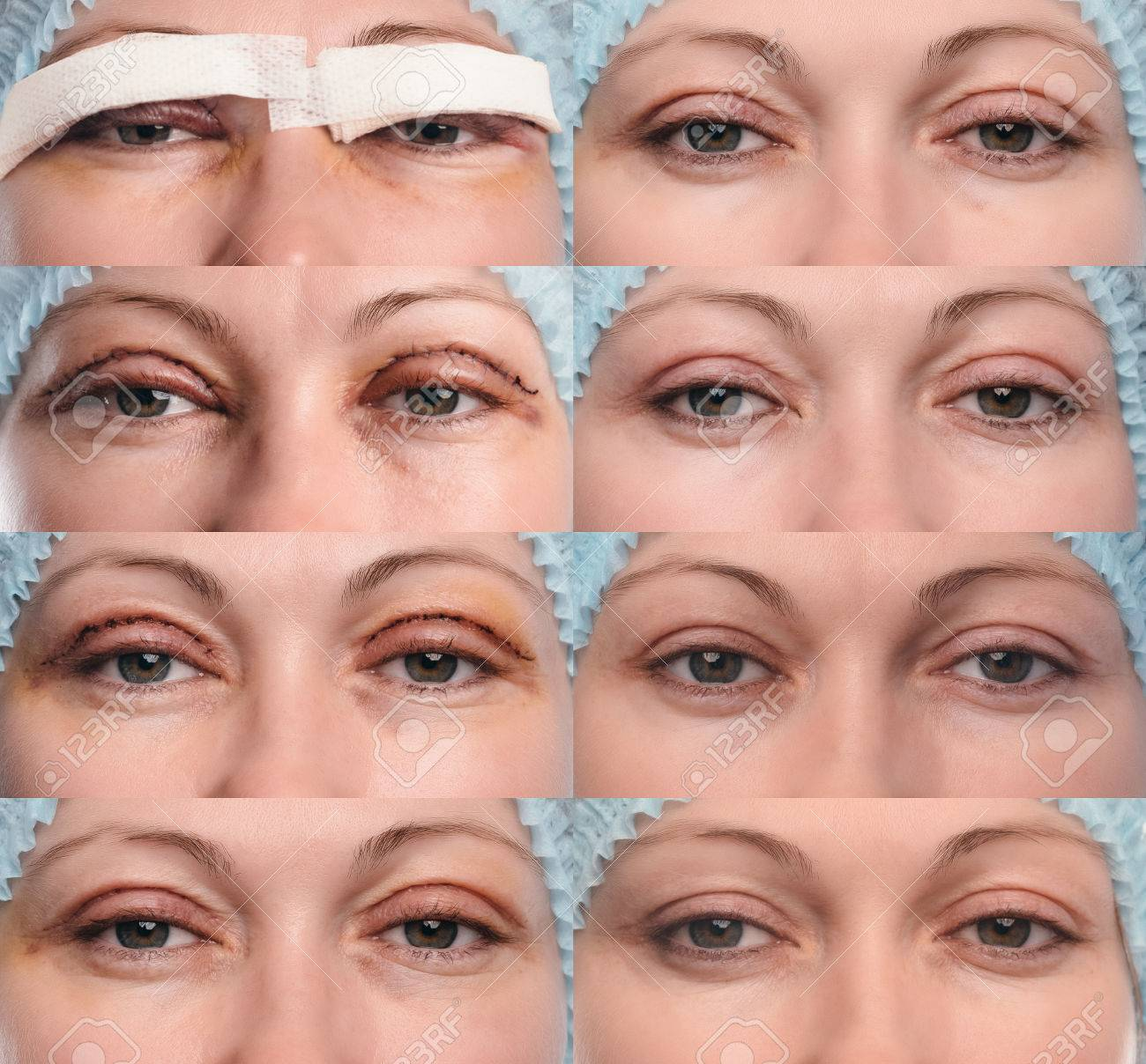 Blepharoplasty day by day photos 3D Ultrasound See What Your Baby Looks Like - Huggies