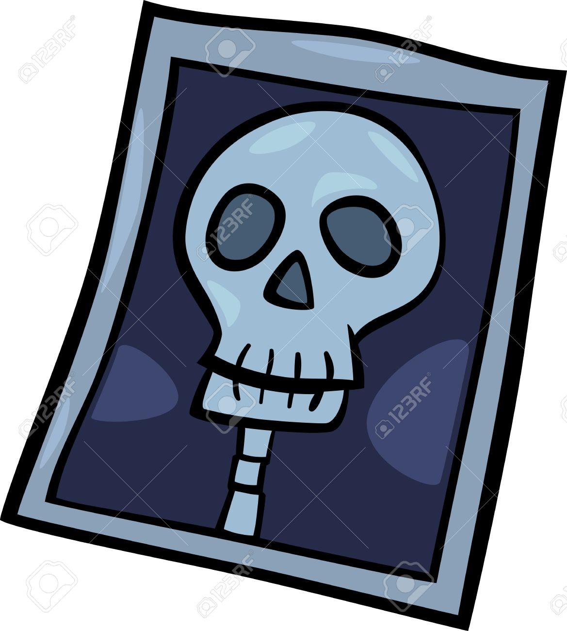 cartoon illustration of x ray photo of human head clip art royalty rh 123rf com x ray clipart png x ray fish clipart