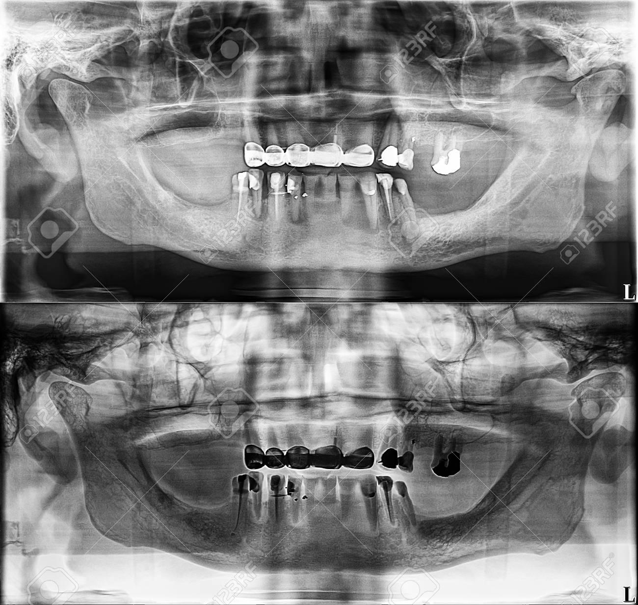 Panoramic Dental Xray, Fixed Teeth, Dental Amalgam Seal, Dental ...