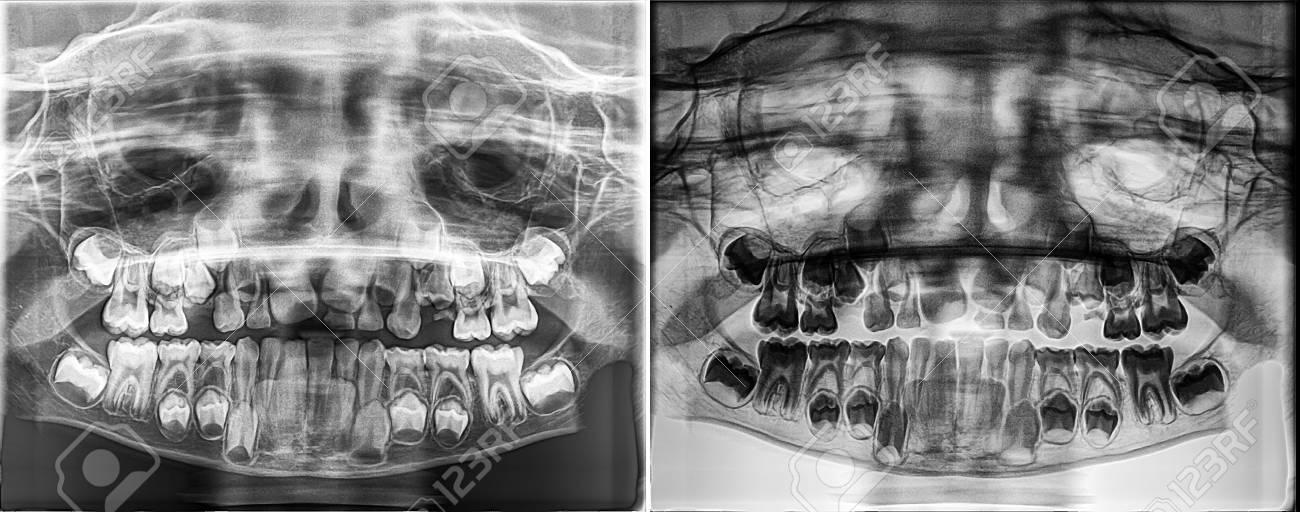 Radiografía Dental Panorámica De Un Niño, Deciduous: Dientes De ...