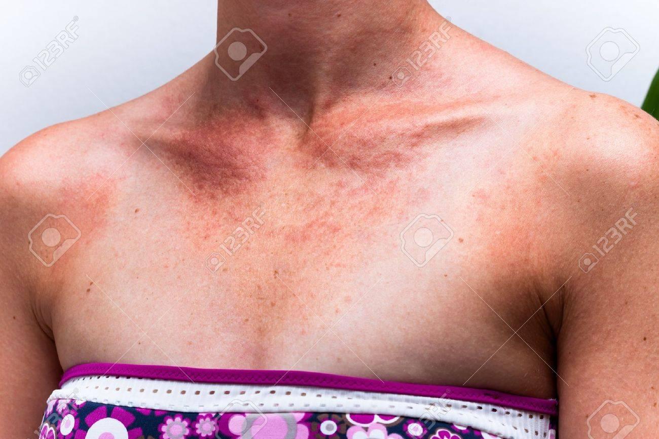 Detail of female sunburnt skin chest with allergic reaction. - 17134194