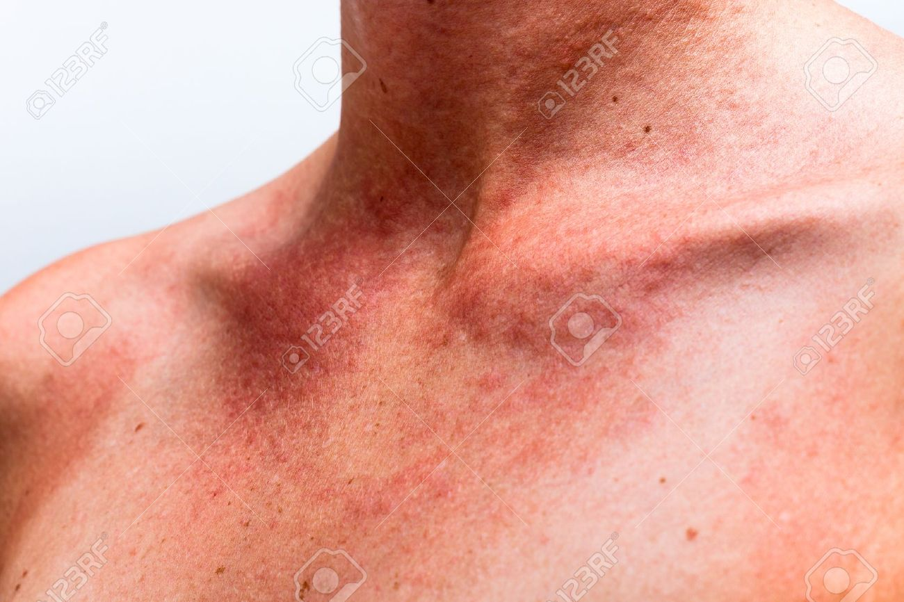 Close up of female sunburnt skin neck with allergic reaction. - 17133809
