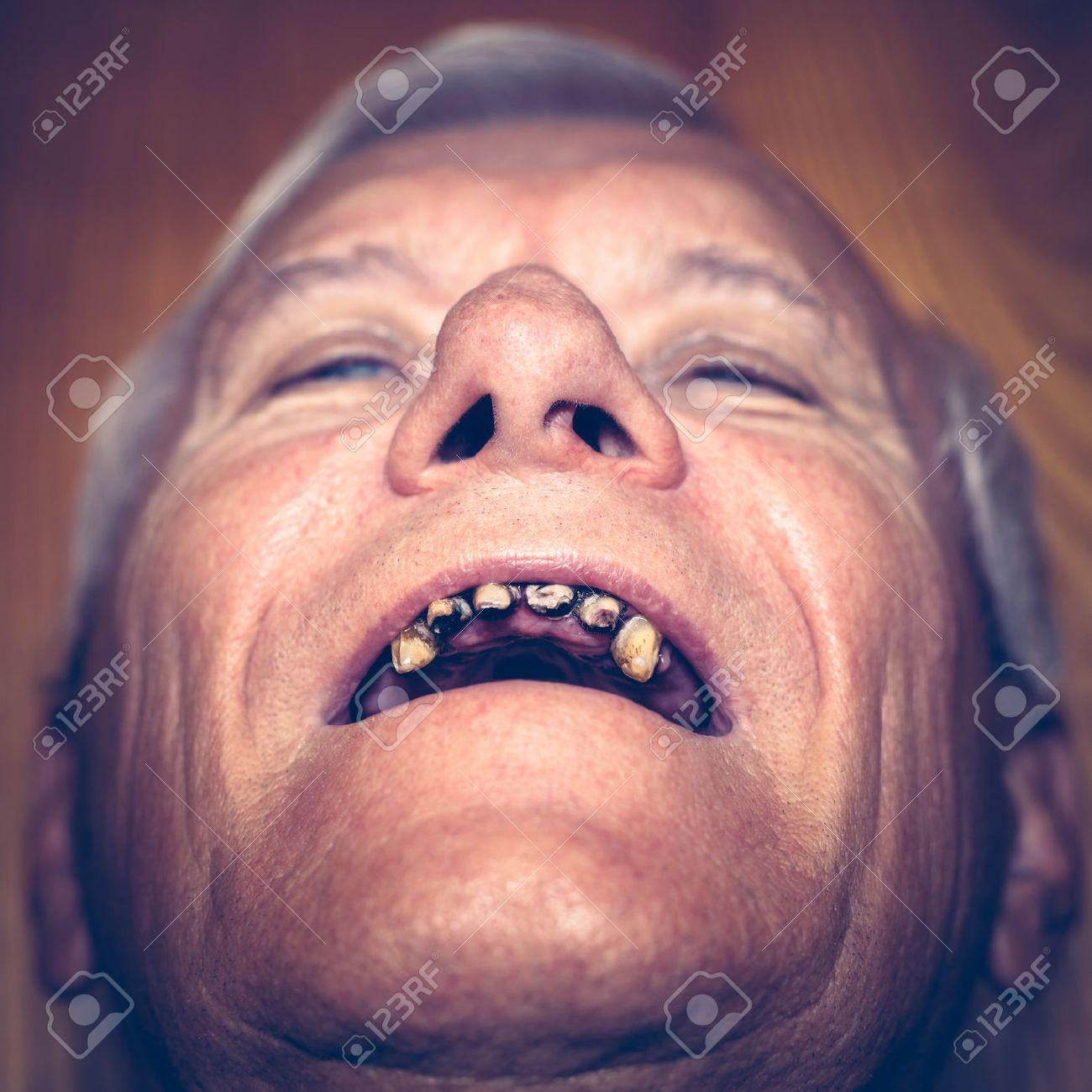 Gesicht mann hässliches Was tun