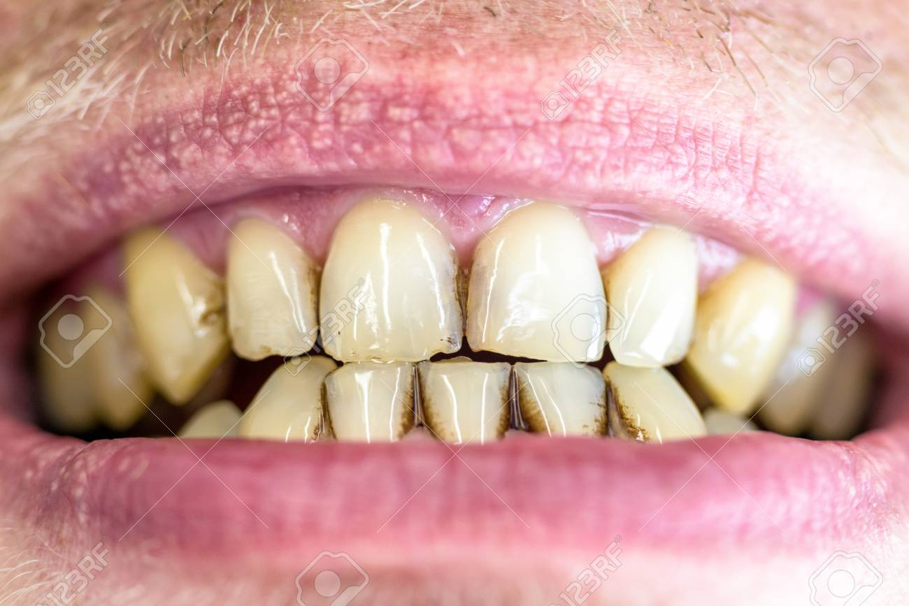 Dental plaque  Tartar on yellow teeth and open mouth