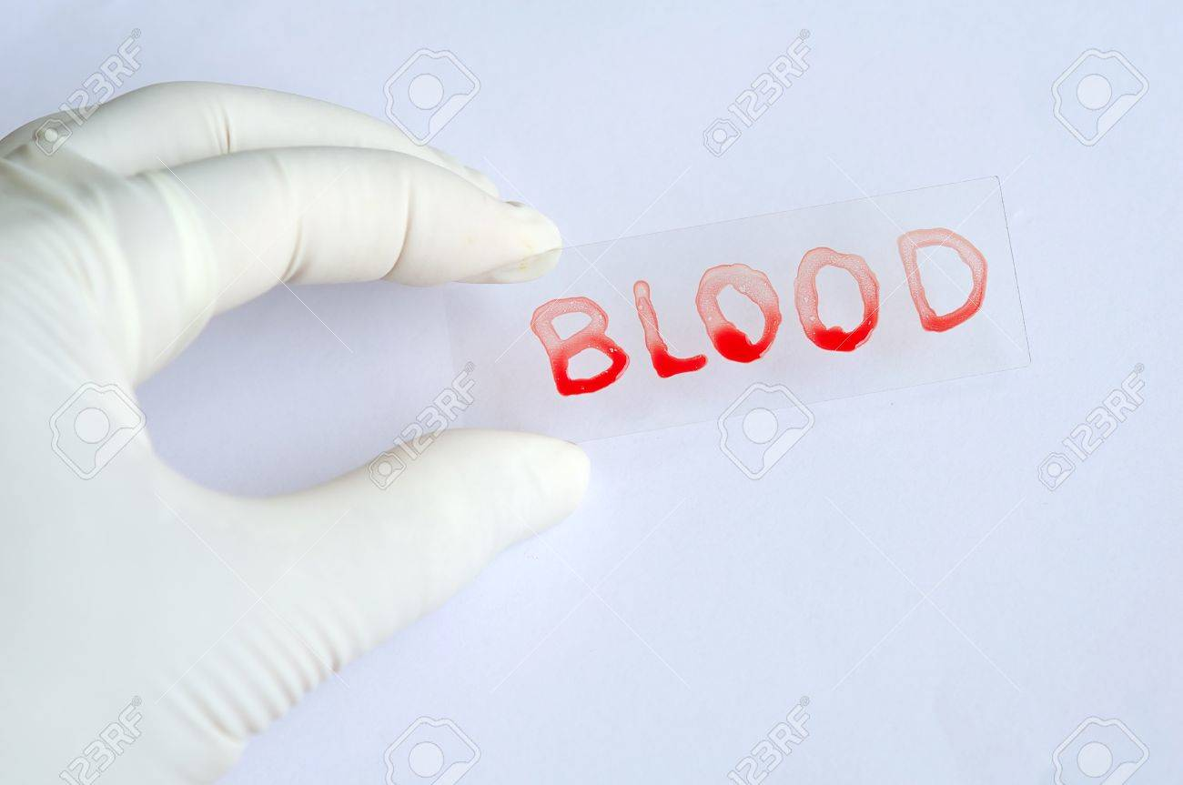 Blood slide Stock Photo - 10547580