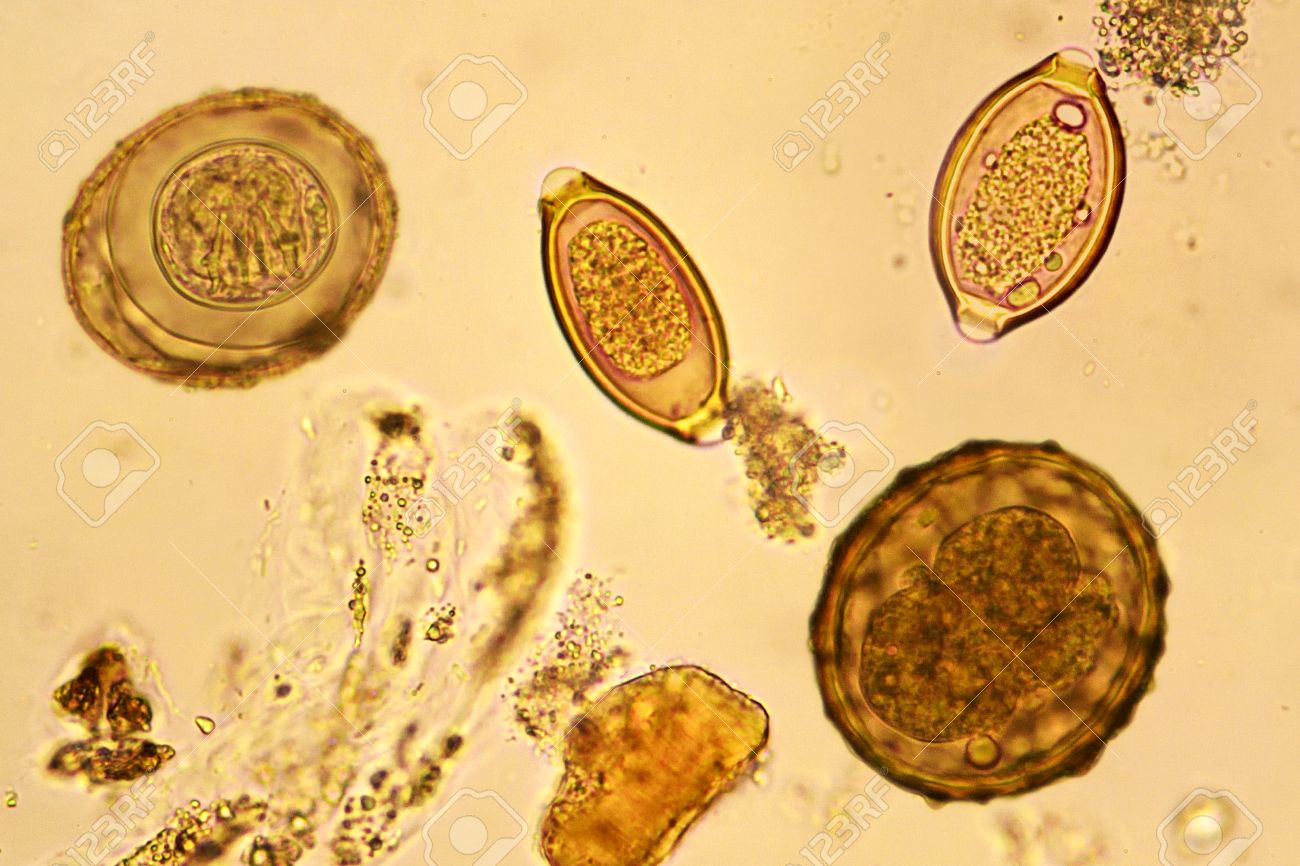helminth eggs images