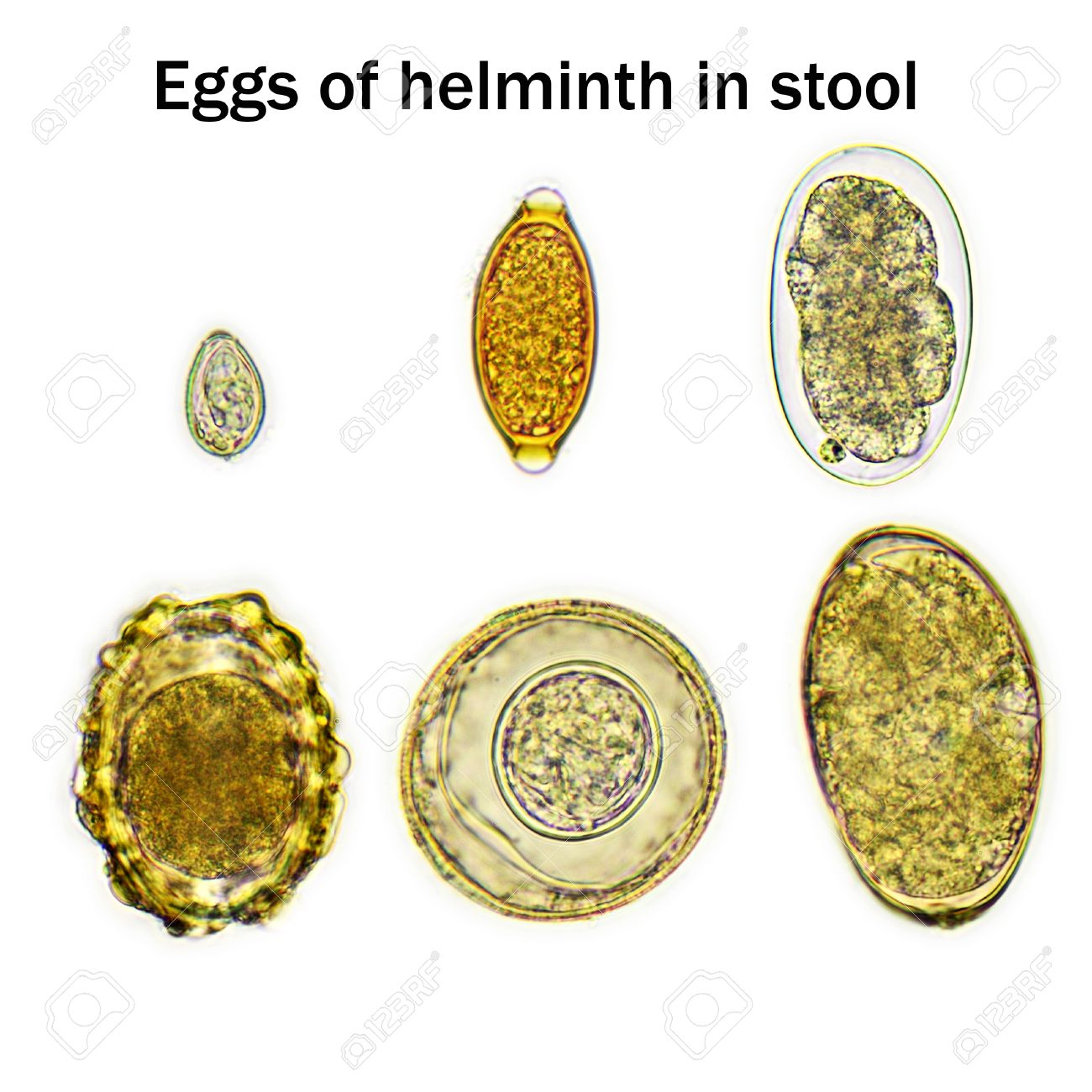 eggs of helminth in stool stock photo picture and royalty free