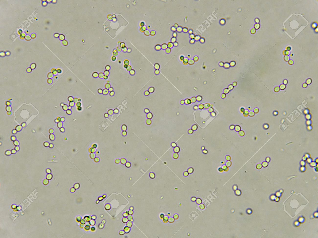 yeast in urine male