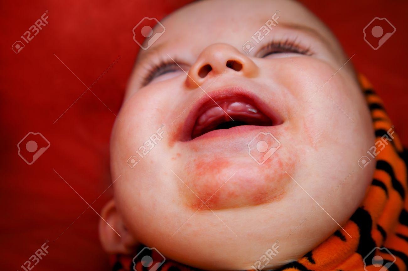 Ausschlag kind zahnt Kind hat