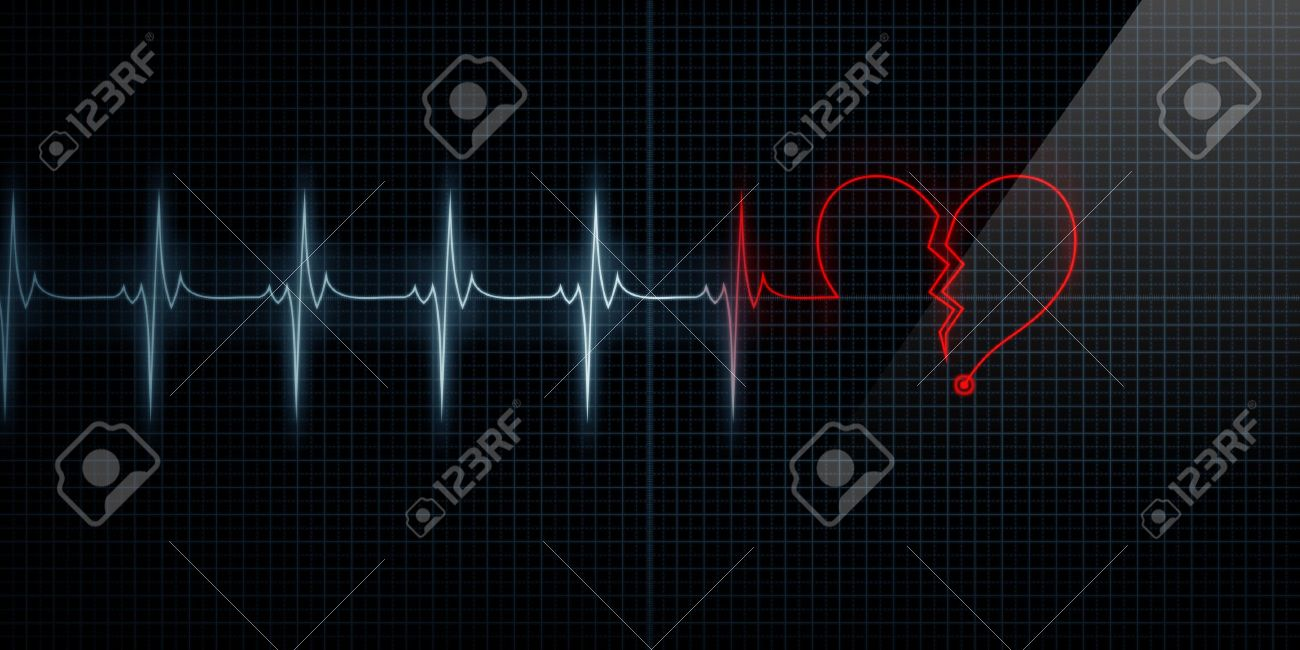 Horizontal Pulse Trace Heart Monitor with the symbol of a red broken heart in line with the pulse. Concept for broken heart or heart attack. Stock Photo - 10444970