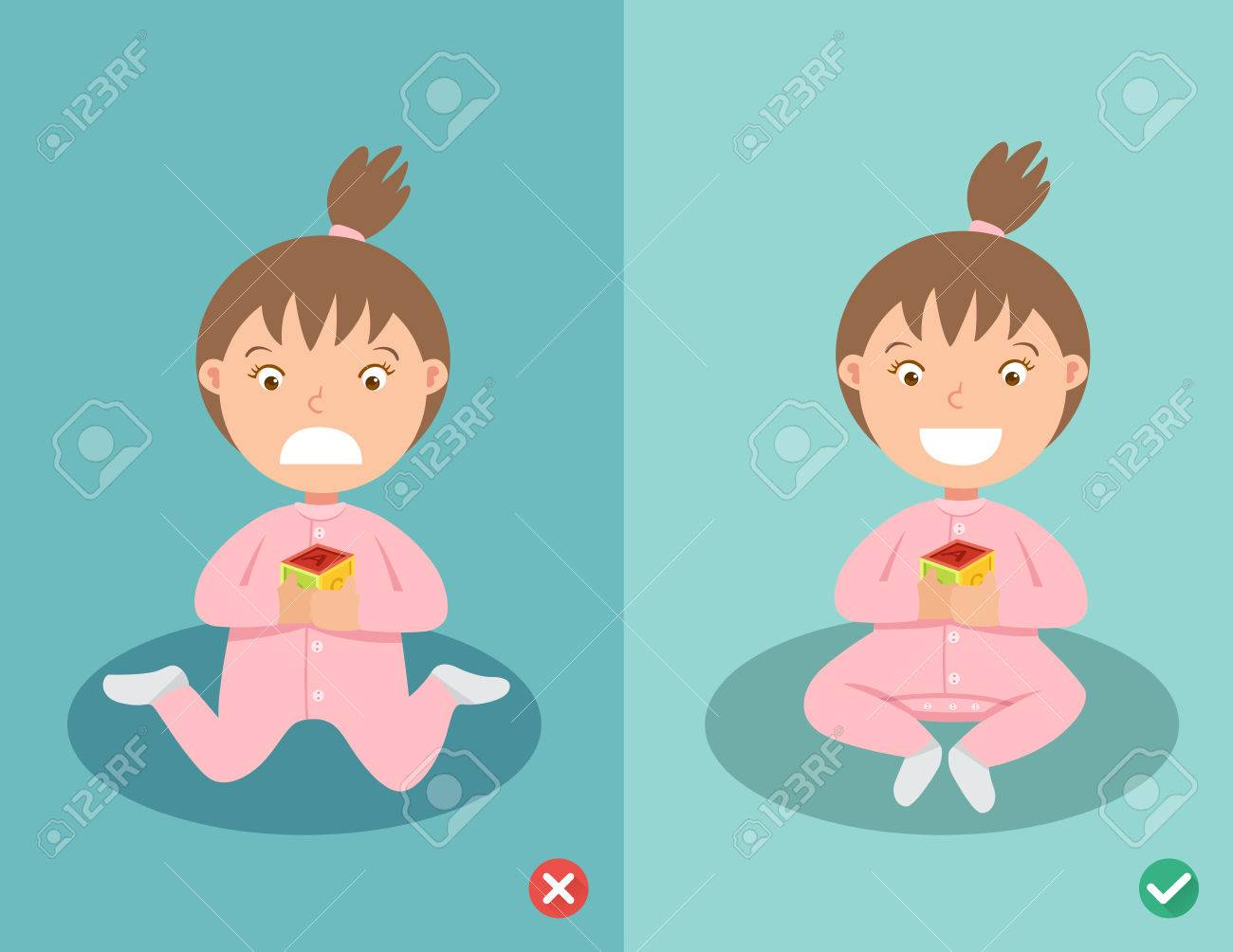 Right and wrong ways sitting position for child, stop W sitting position (safely for internal femoral torsion) . - 52743374
