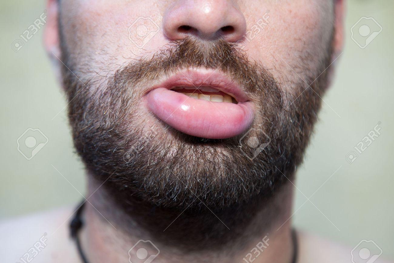 腫れ 画像 唇