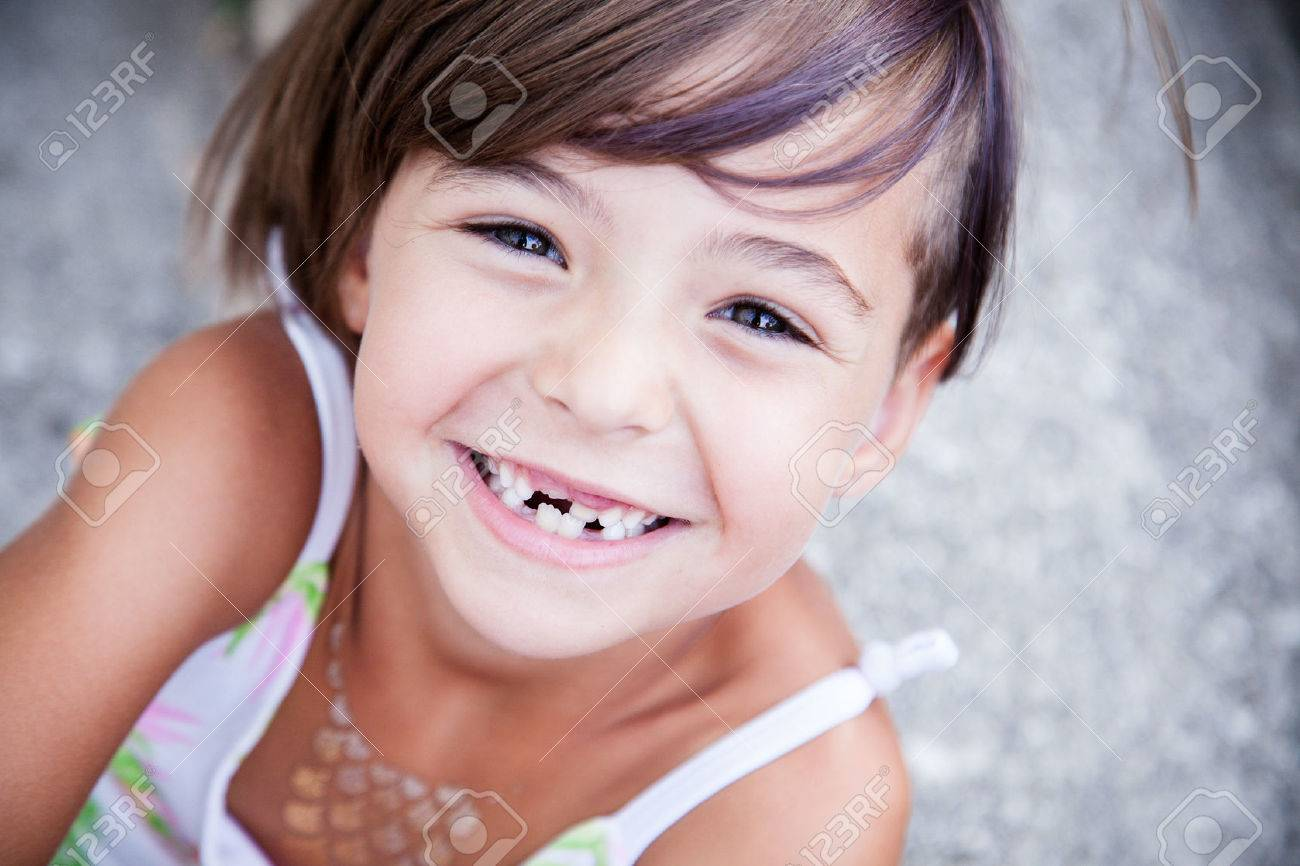 Little girl with big smile and missing milk teeth - 53108322