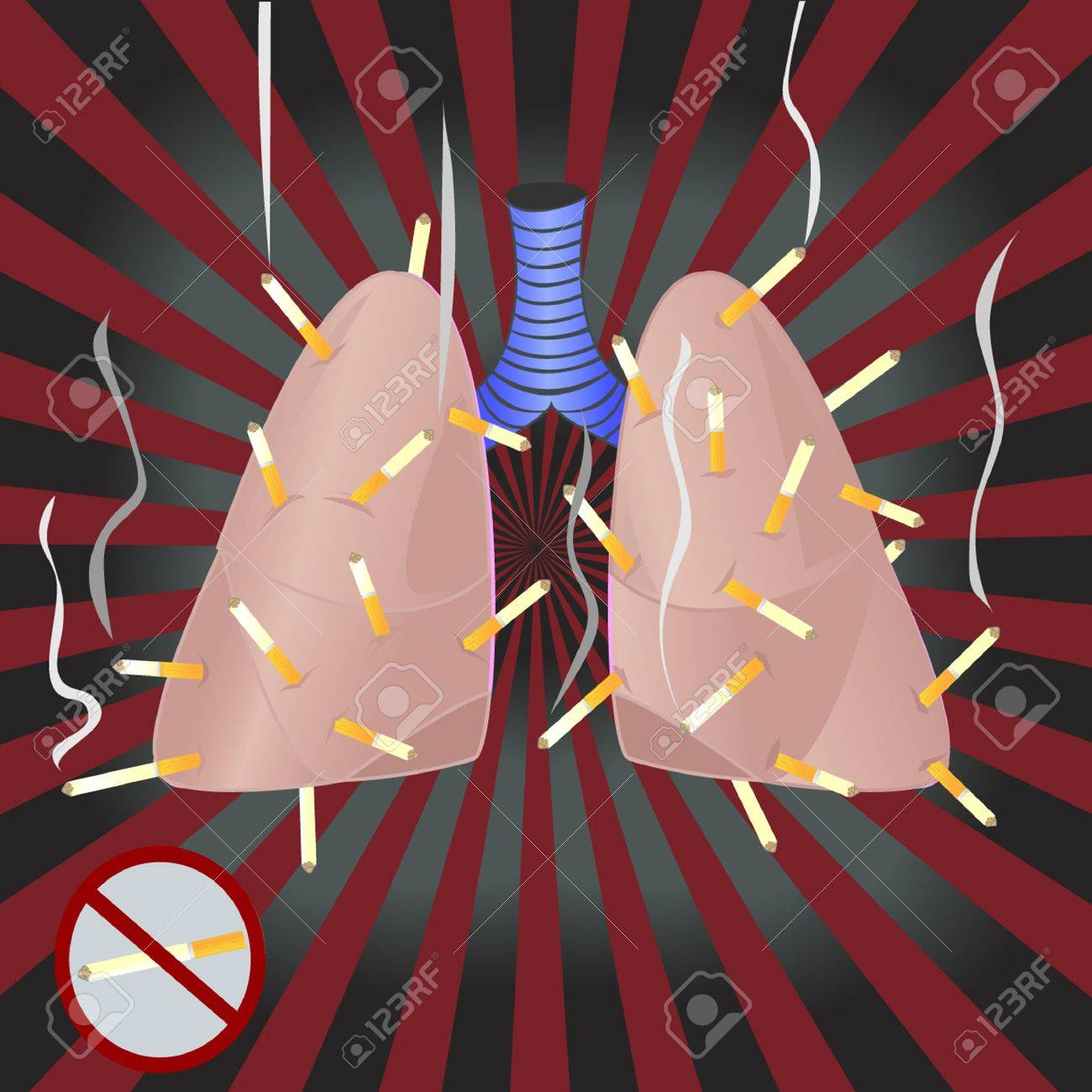 Lungs are smoking a lot of cigarettes Stock Vector - 11218810