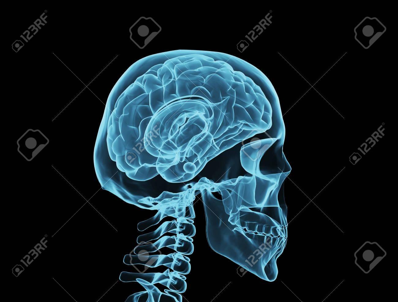 Brain xray Stock Photo - 11180067