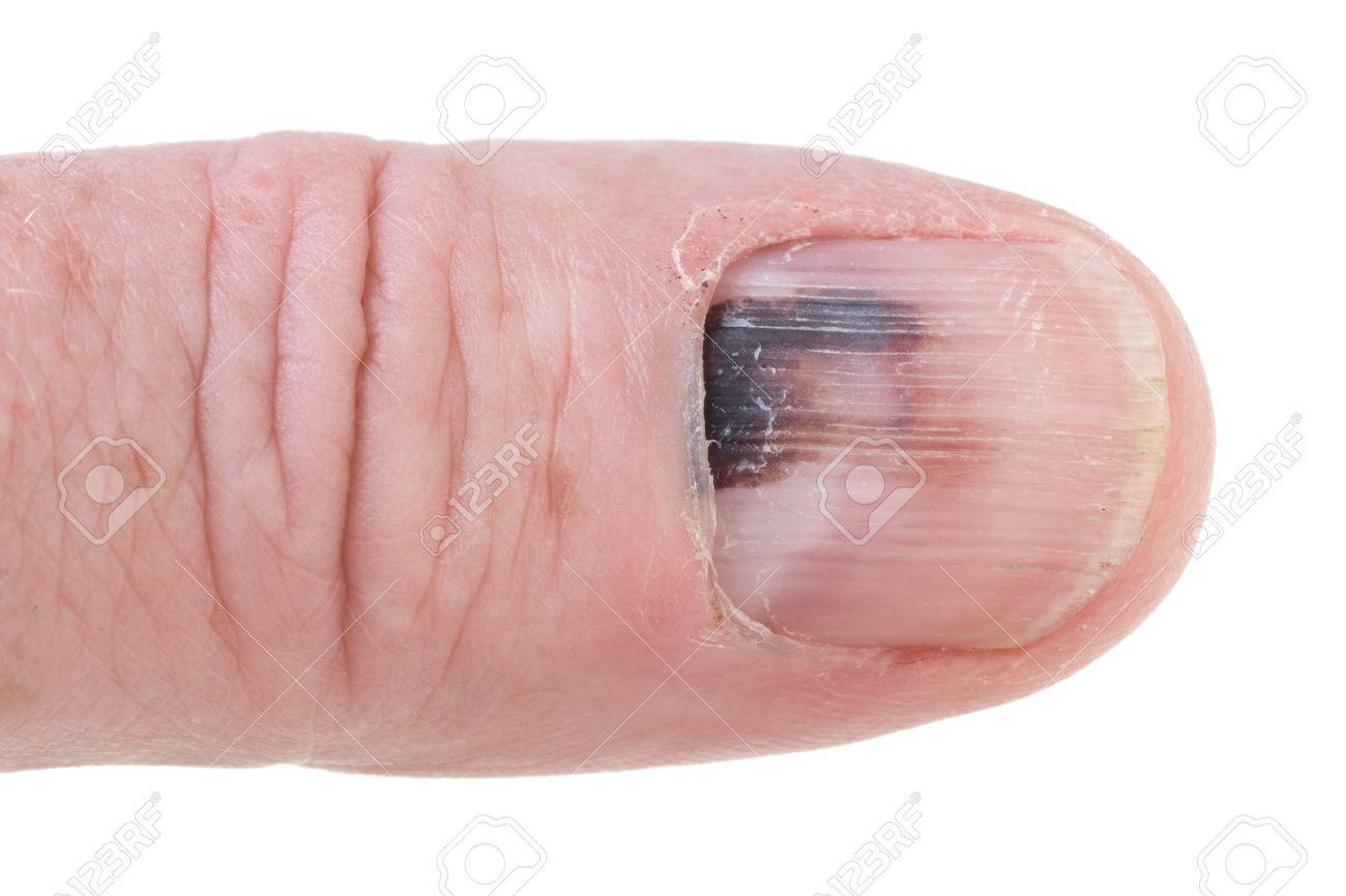 Gequetscht daumen Fingernagel gequetscht