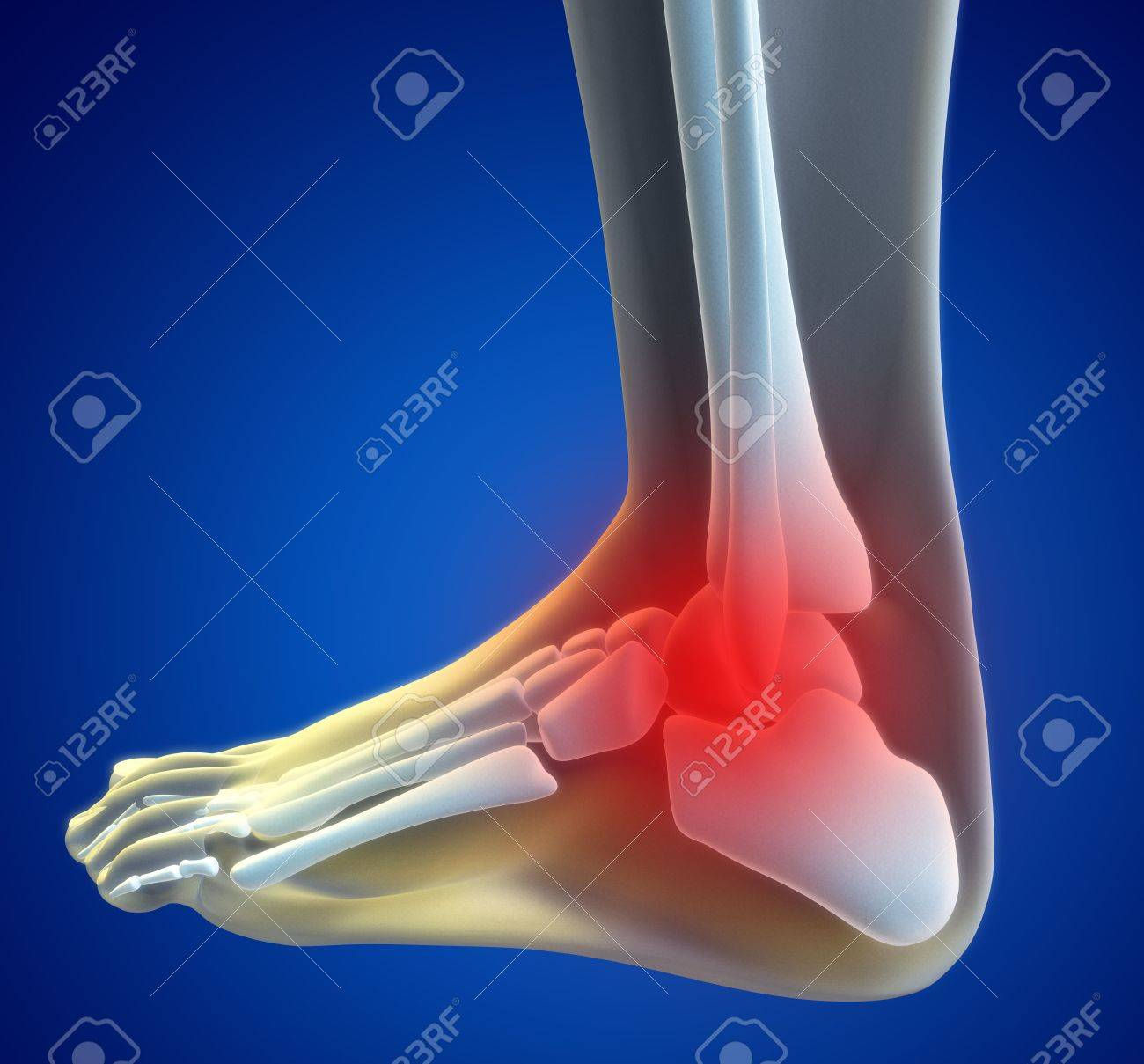An illustration of a foot xray with a red spot showing the injured ankle. Stock Illustration - 7038012