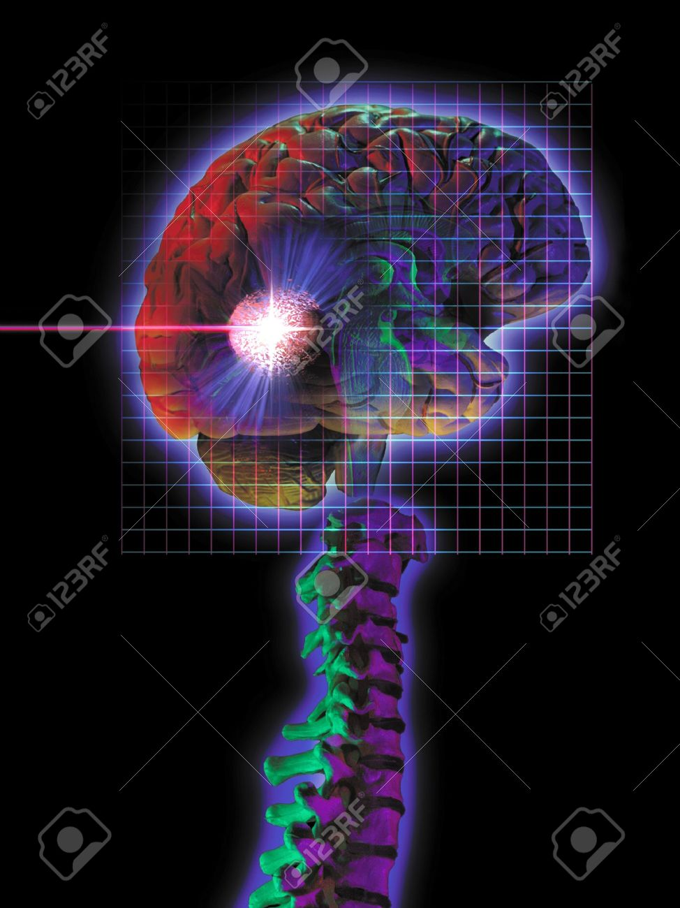 Diamgram of Radiosurgery being performed. Stock Photo - 15442283