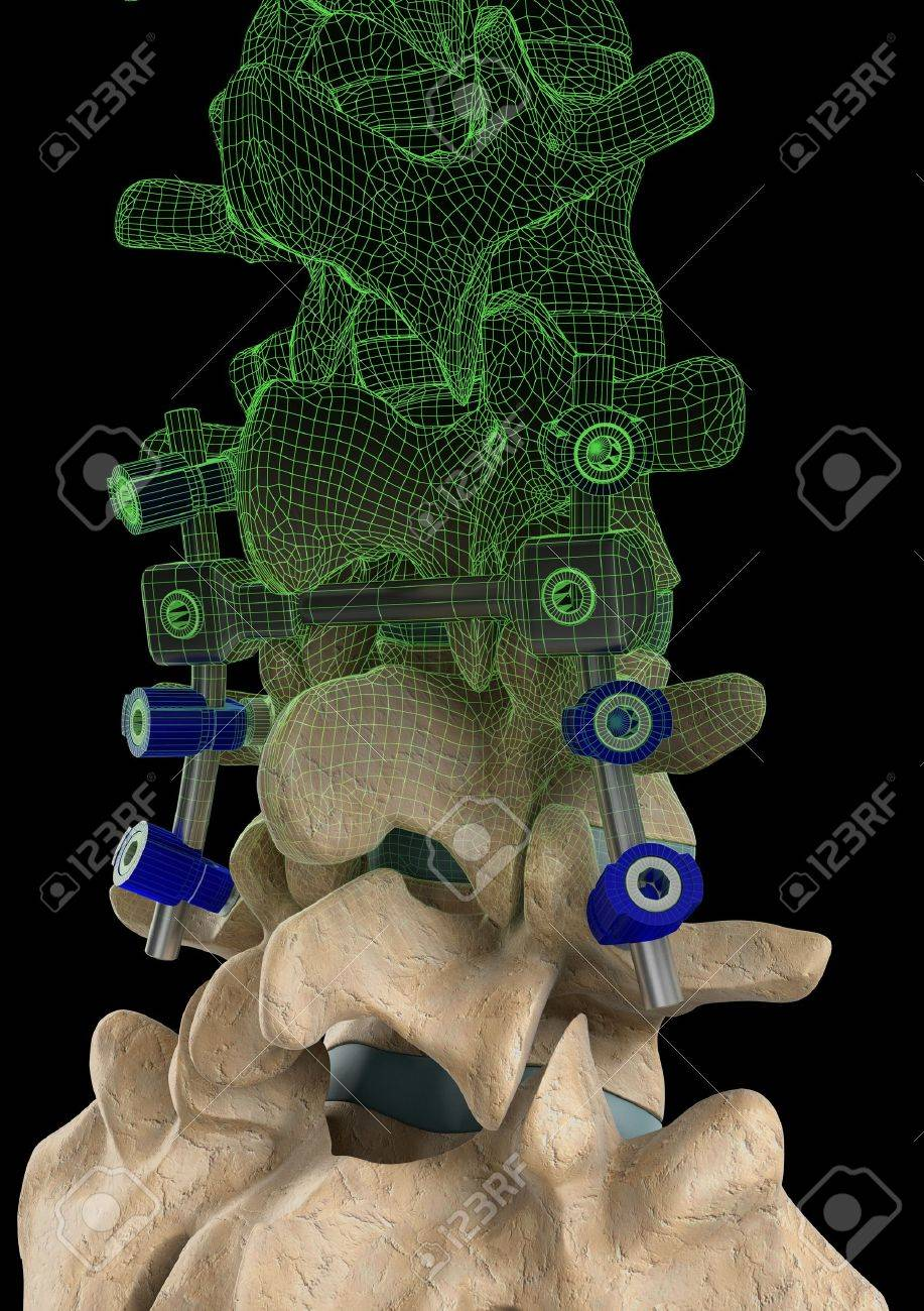 Rendering of a spine with a screw support system and a computer generated wire frame on a black background. Stock Photo - 16948321
