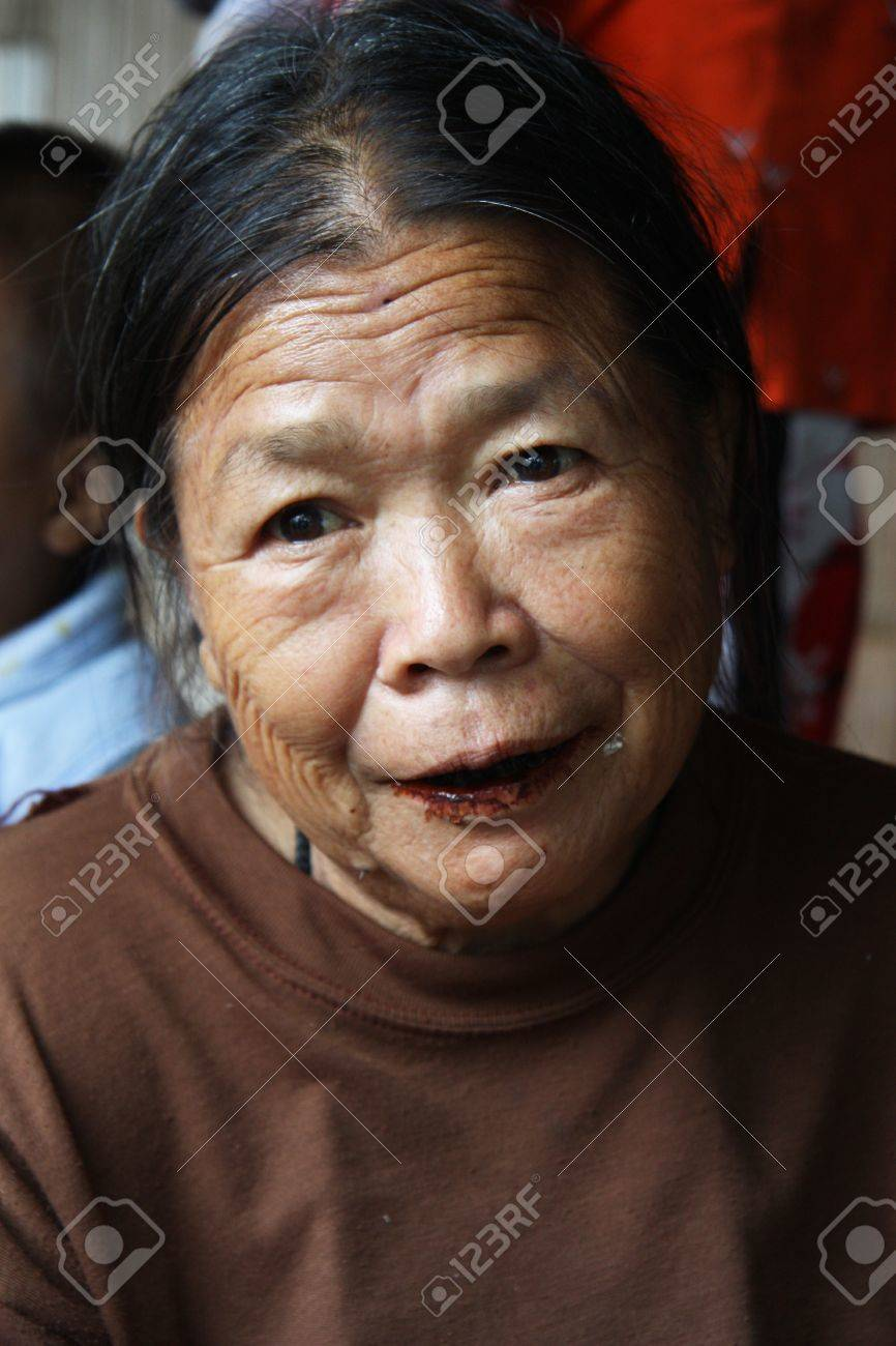 Karen Woman with lips and teeth covered with brown colour in tribal village in Chiang Mai, Thailand - 31.07.2011 Stock Photo - 12993487