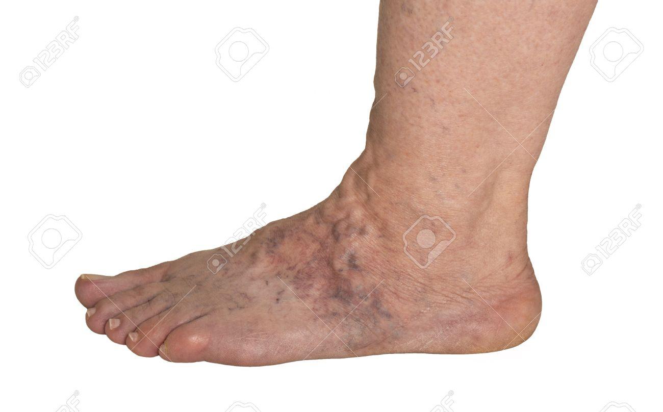 un pied