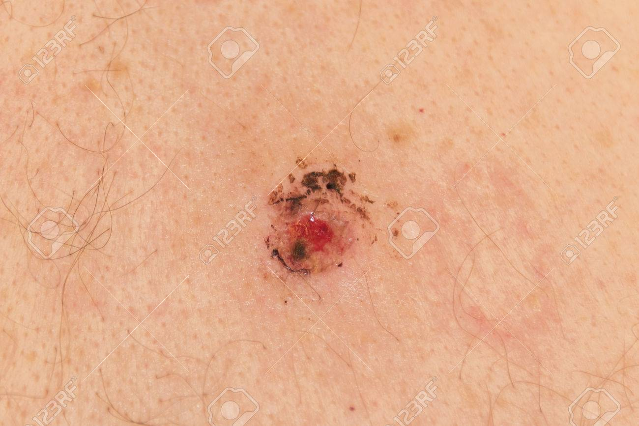 How to Undergo a Mole Biopsy picture